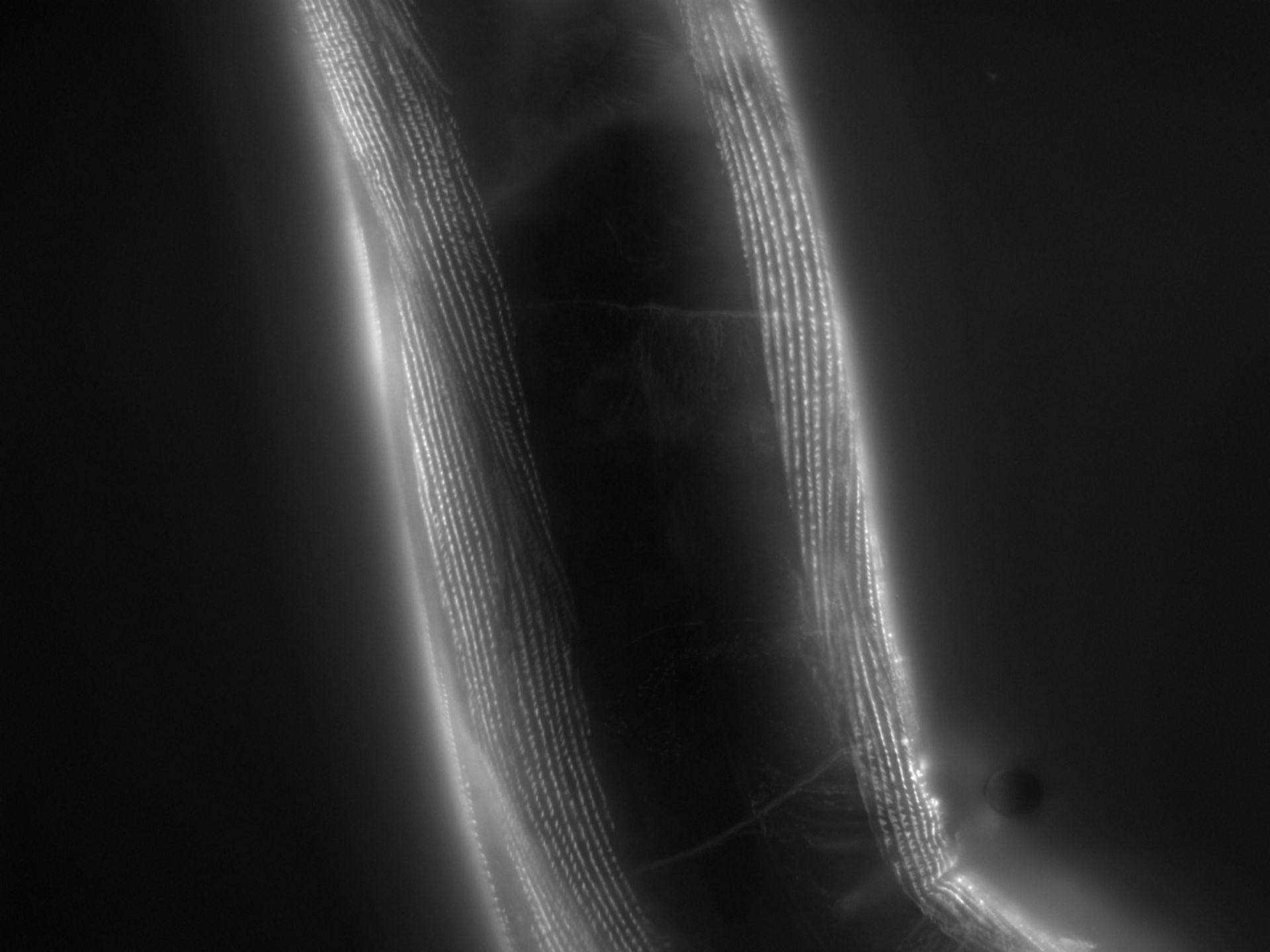 Caenorhabditis elegans (Actin filament) - CIL:1181