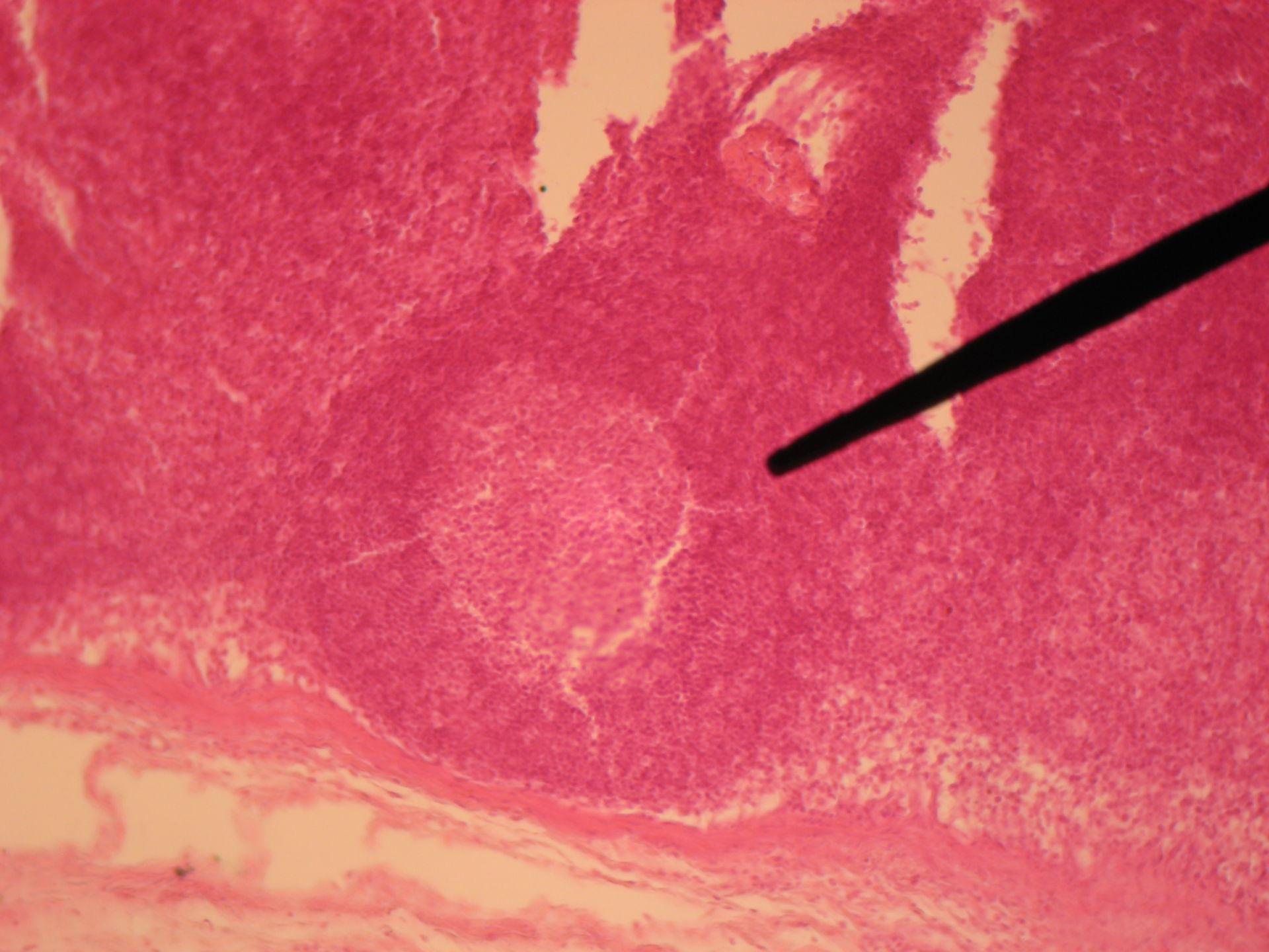 Lymphknoten des Rindes 8 - Lymphknötchen