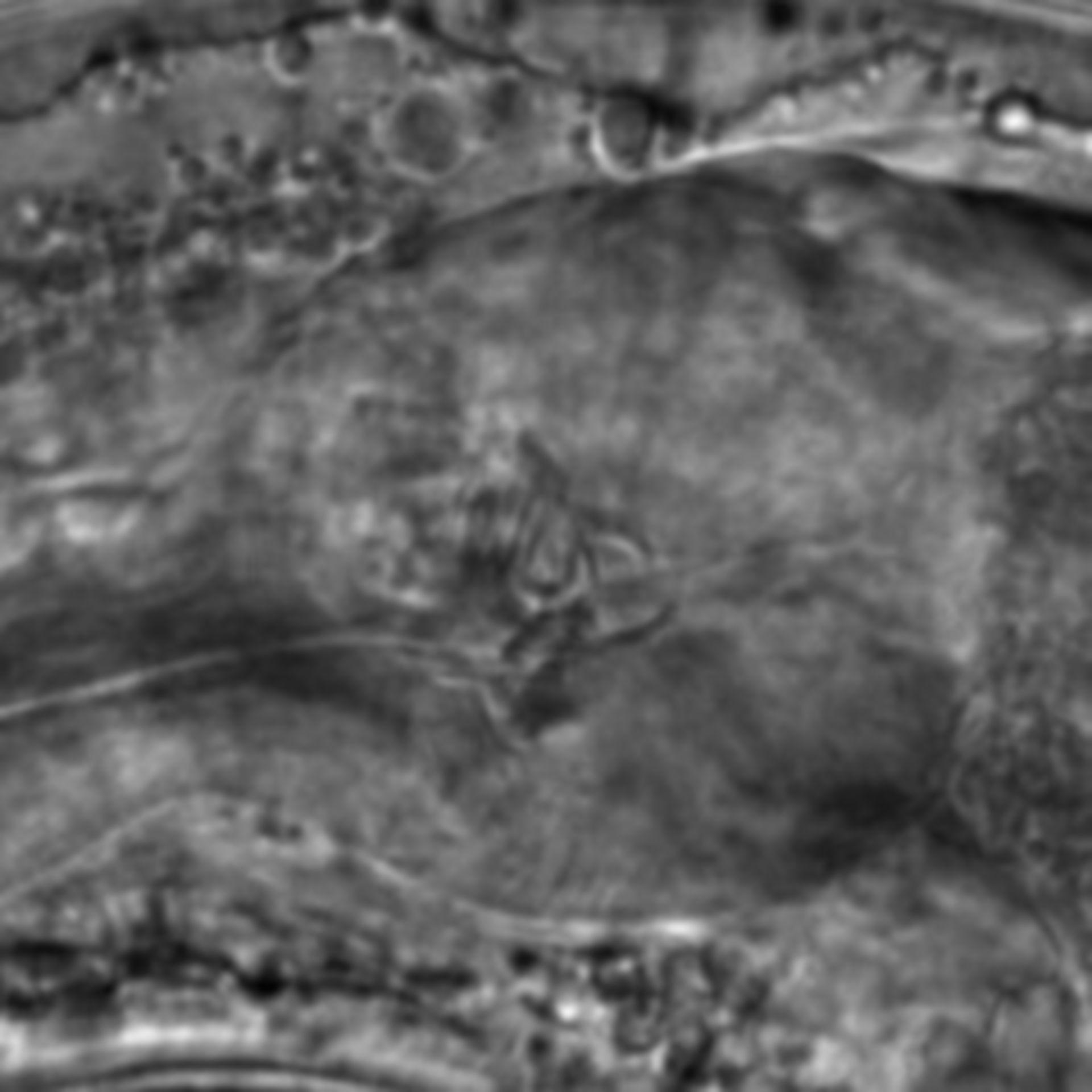 Caenorhabditis elegans - CIL:1781