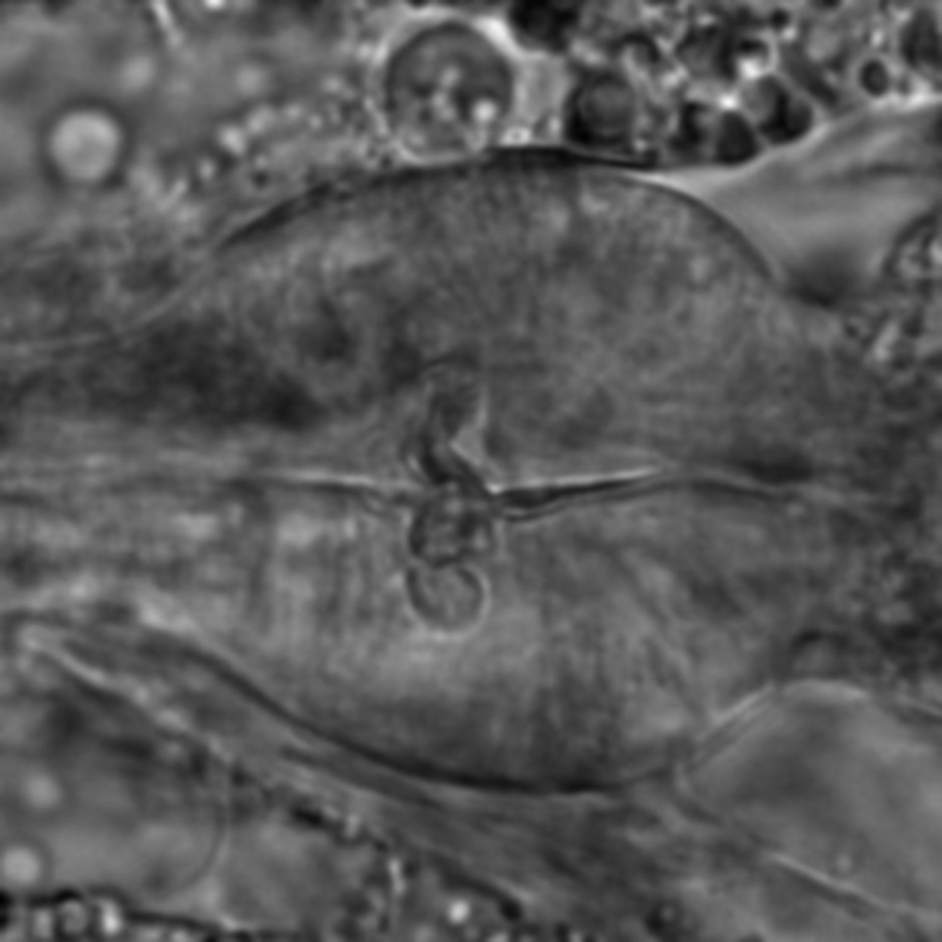 Caenorhabditis elegans - CIL:1698