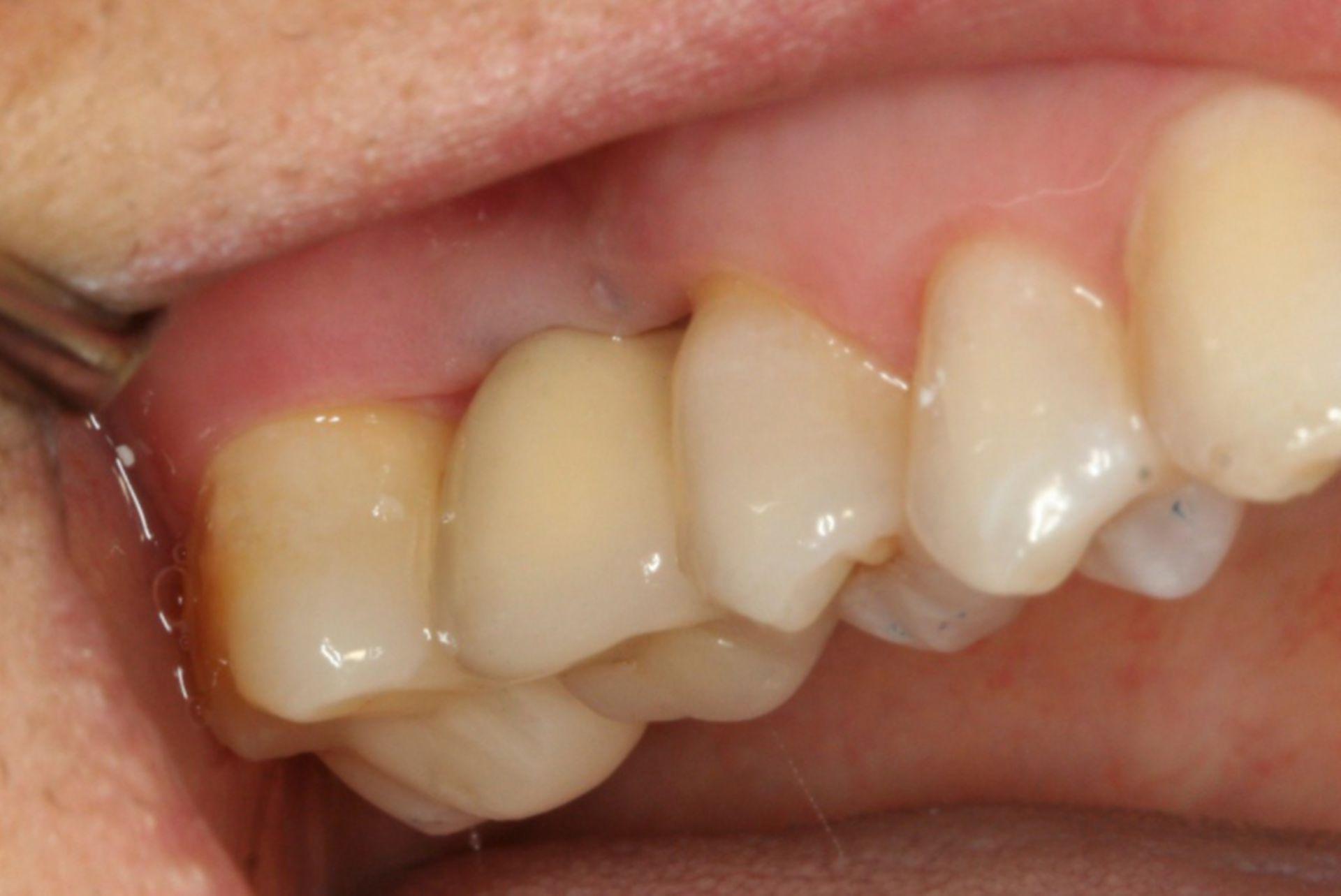 Protesi dentale del sedicesimo dente