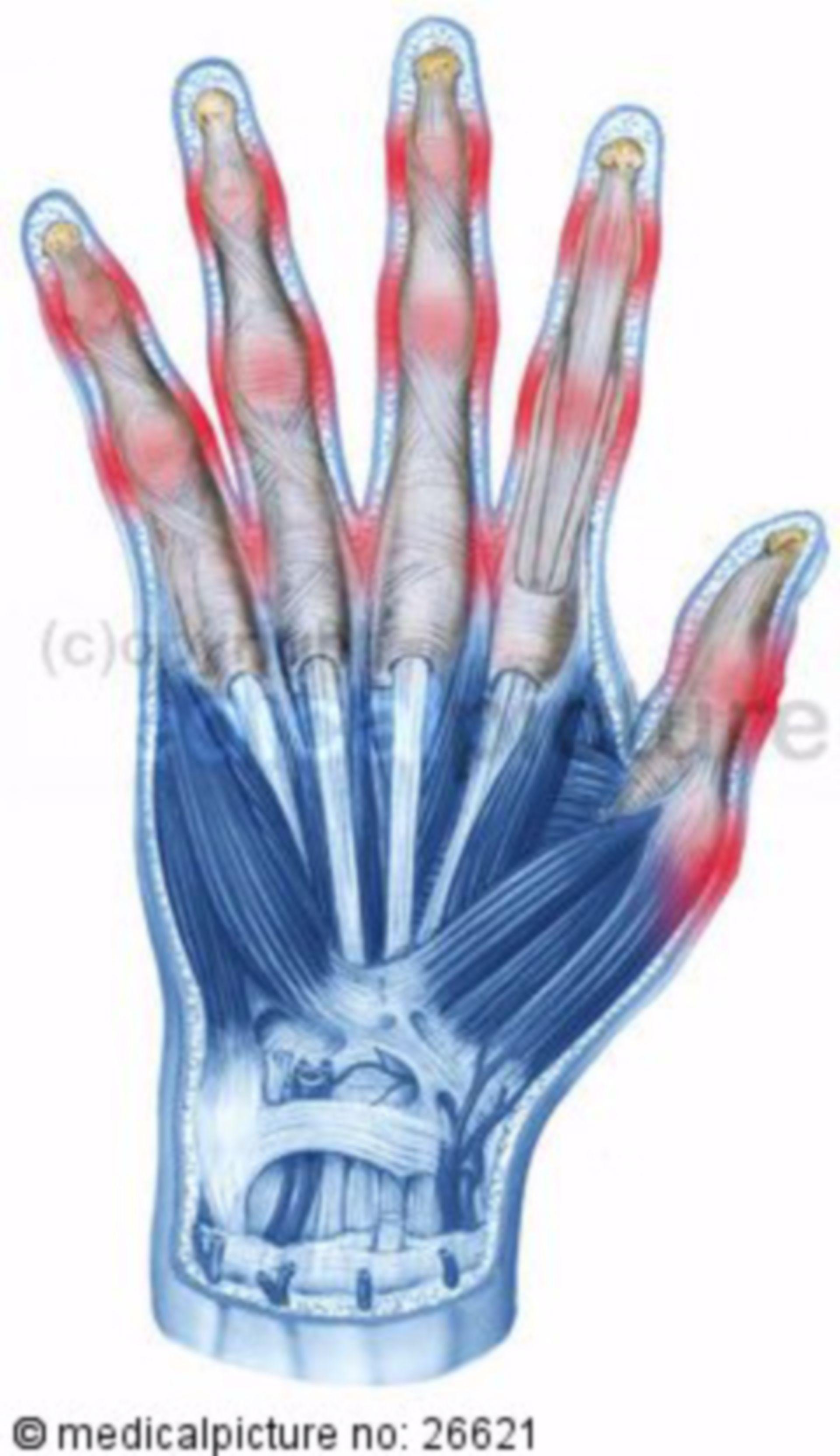 Menschliche Hand mit arthritischen Prädilektionsstellen