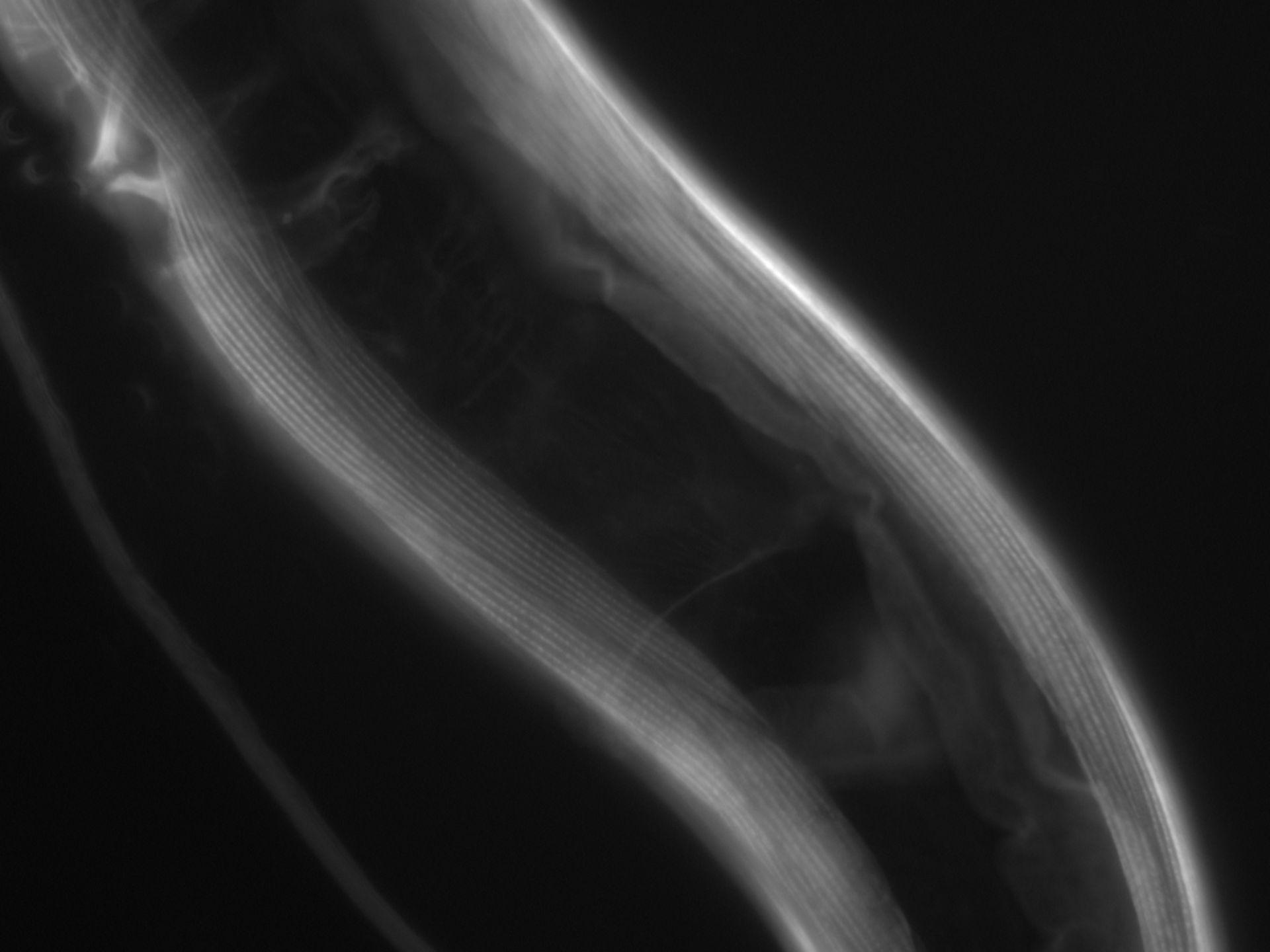 Caenorhabditis elegans (filamento di actina) - CIL:1059