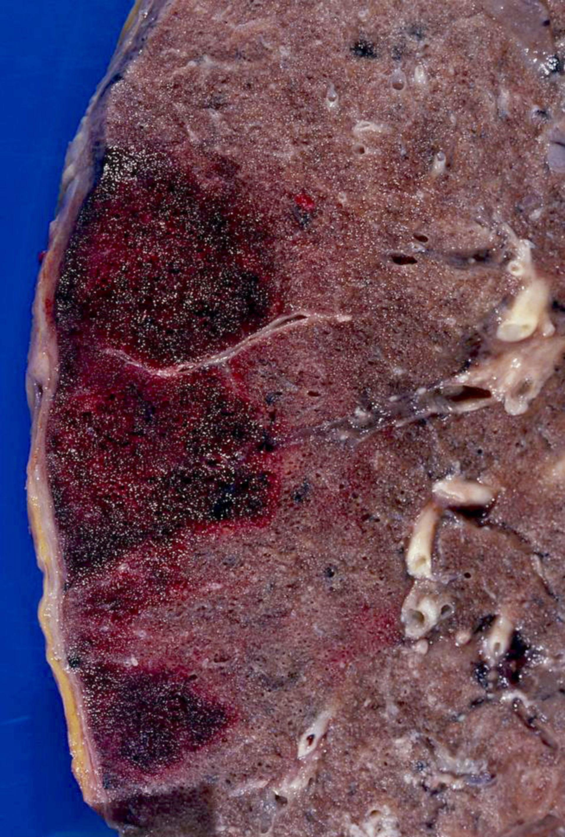 Fresh hemorrhagic lung infarctions