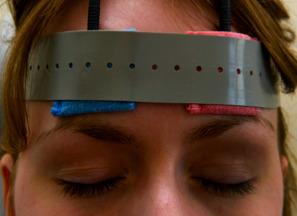 Für die Wechselstromstimulation werden die Elektroden auf der Stirn über den Augen angebracht. c B. Sabel