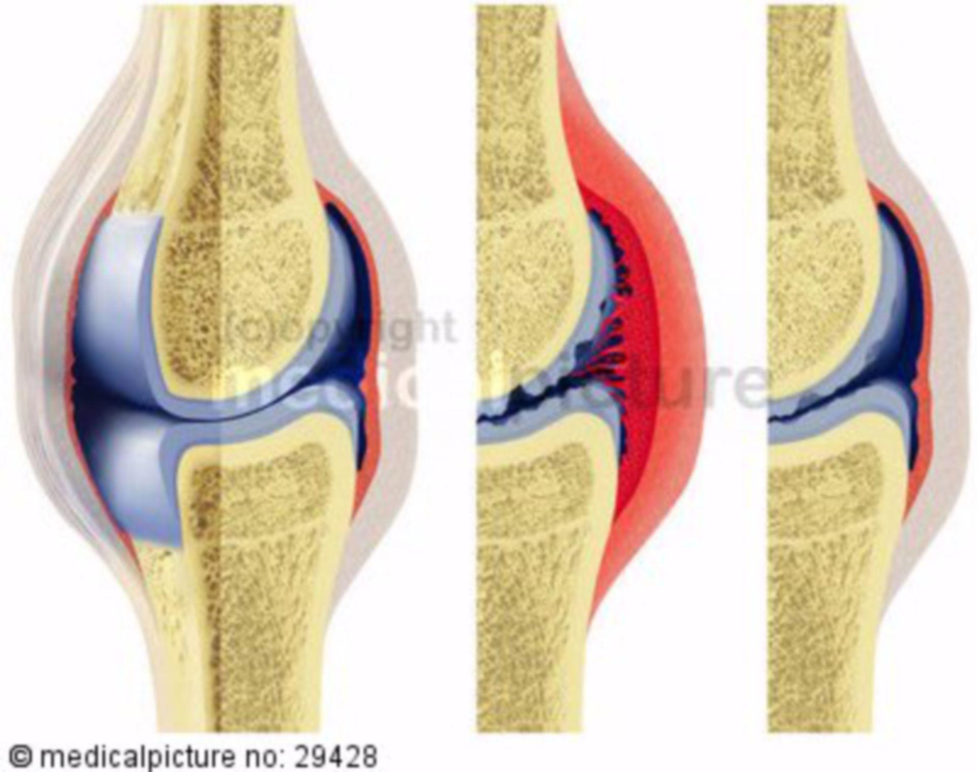 Development and progress of (treated) rheumatoid arthritis