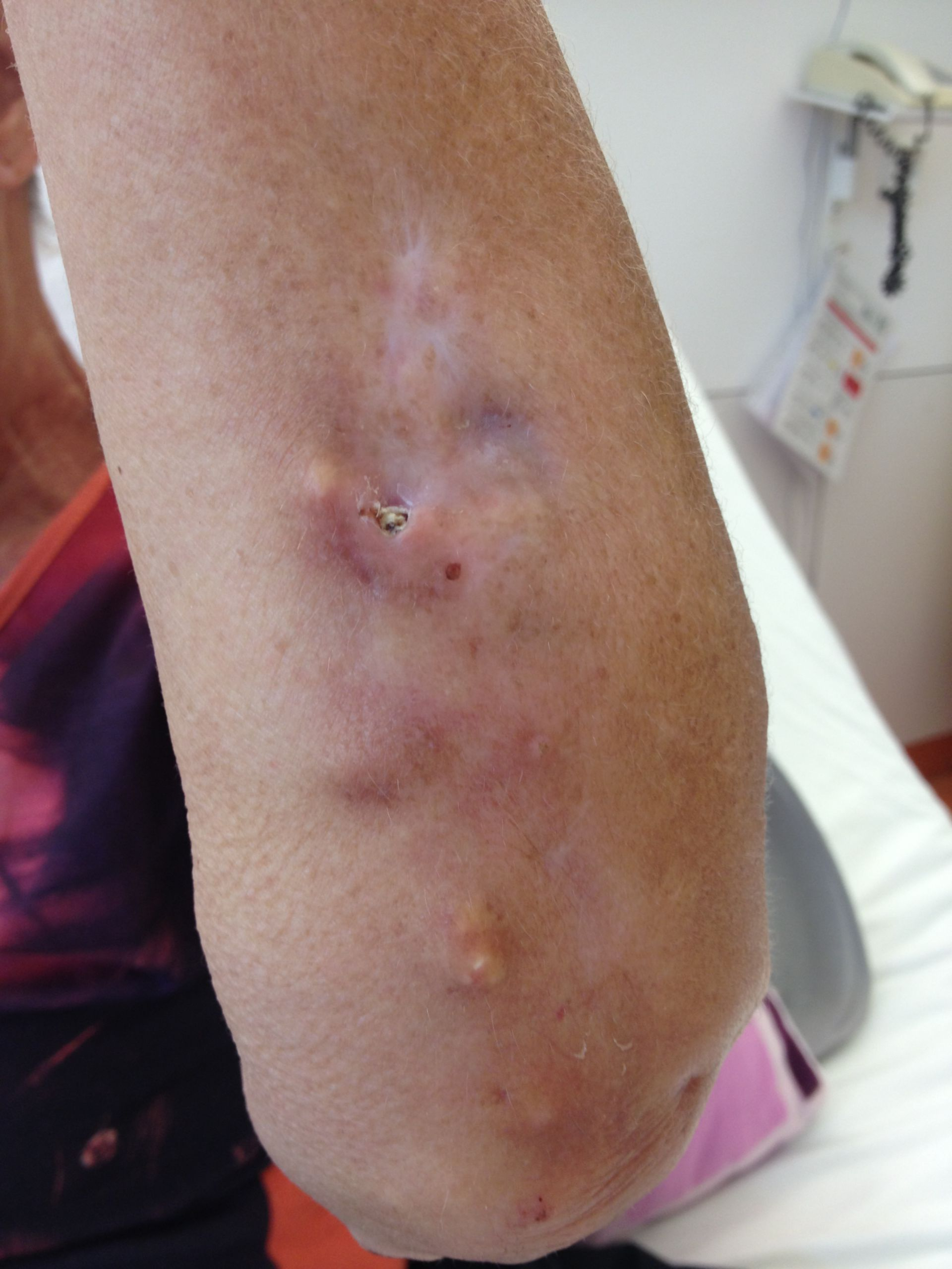 Calcinosis cutis bei CREST-Syndrom
