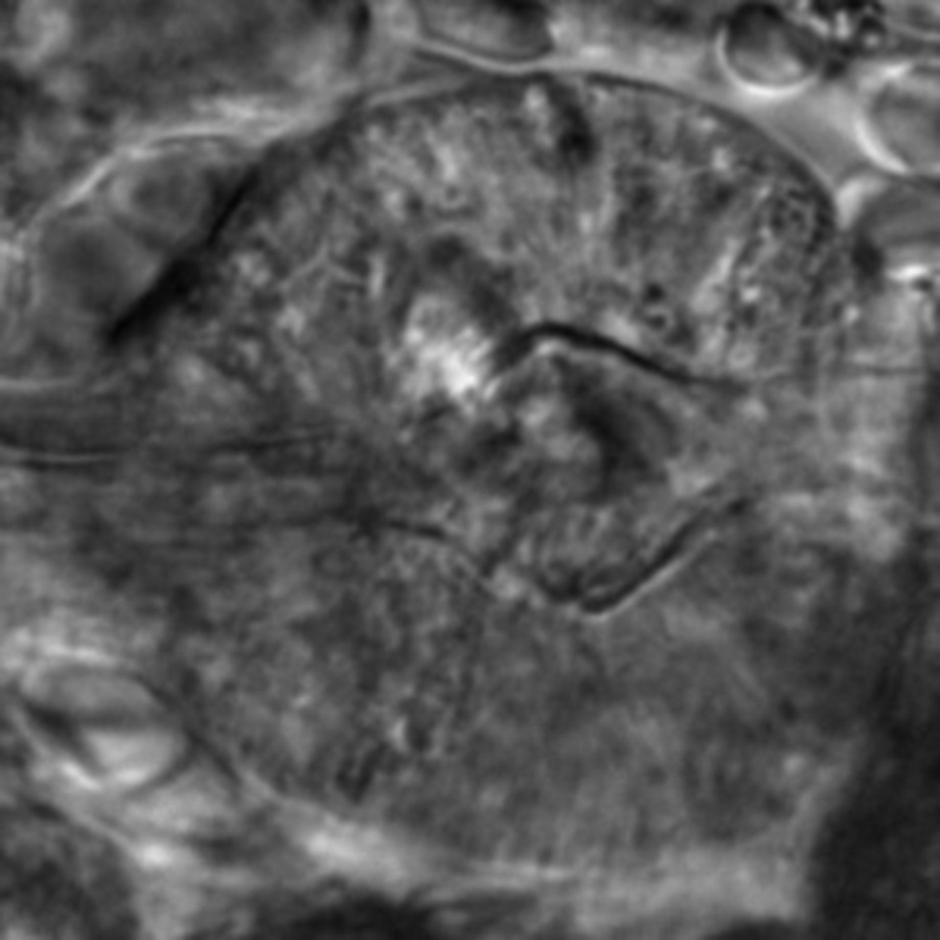 Caenorhabditis elegans - CIL:2608