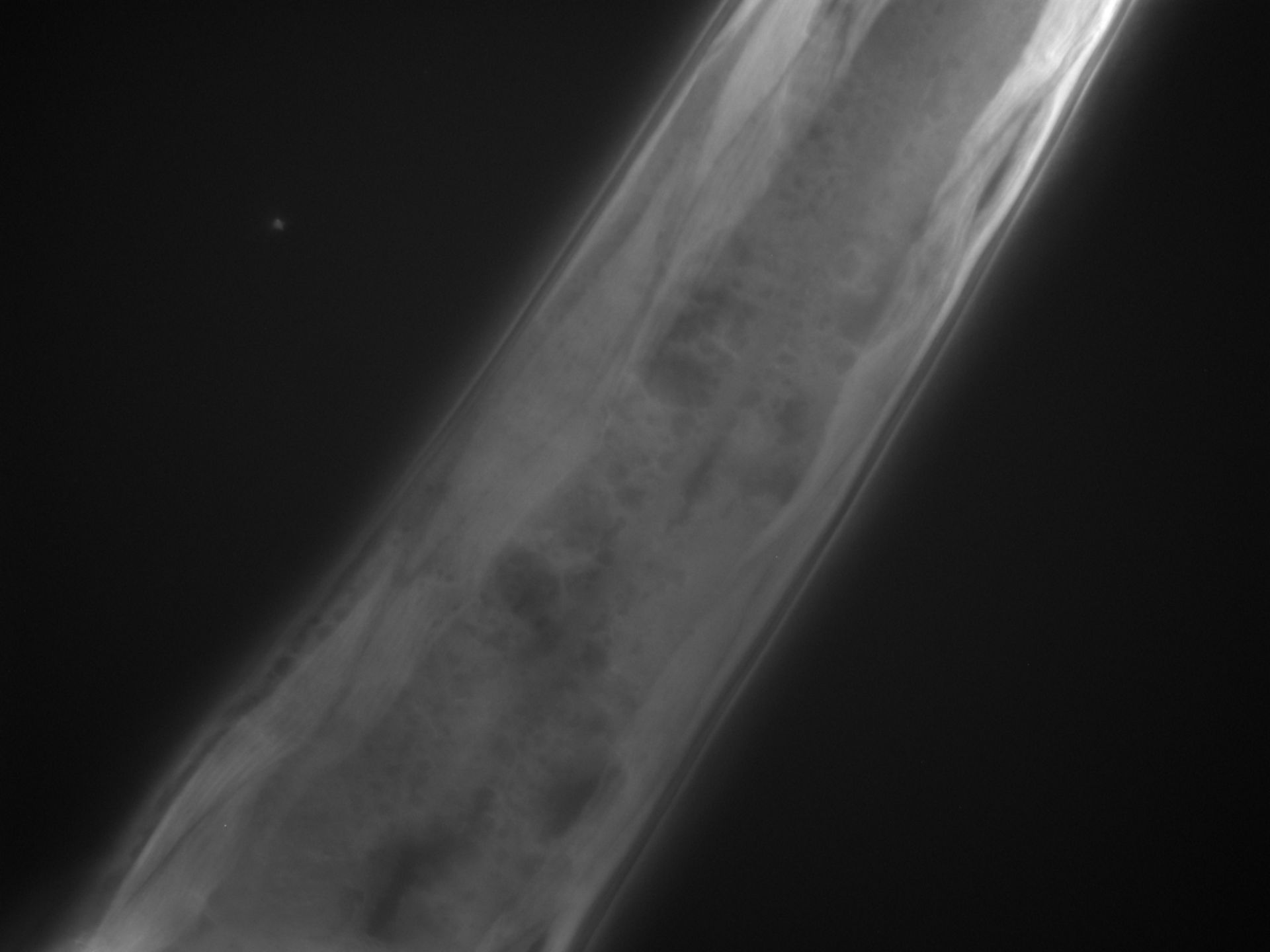 Caenorhabditis elegans (filamento di actina) - CIL:1302