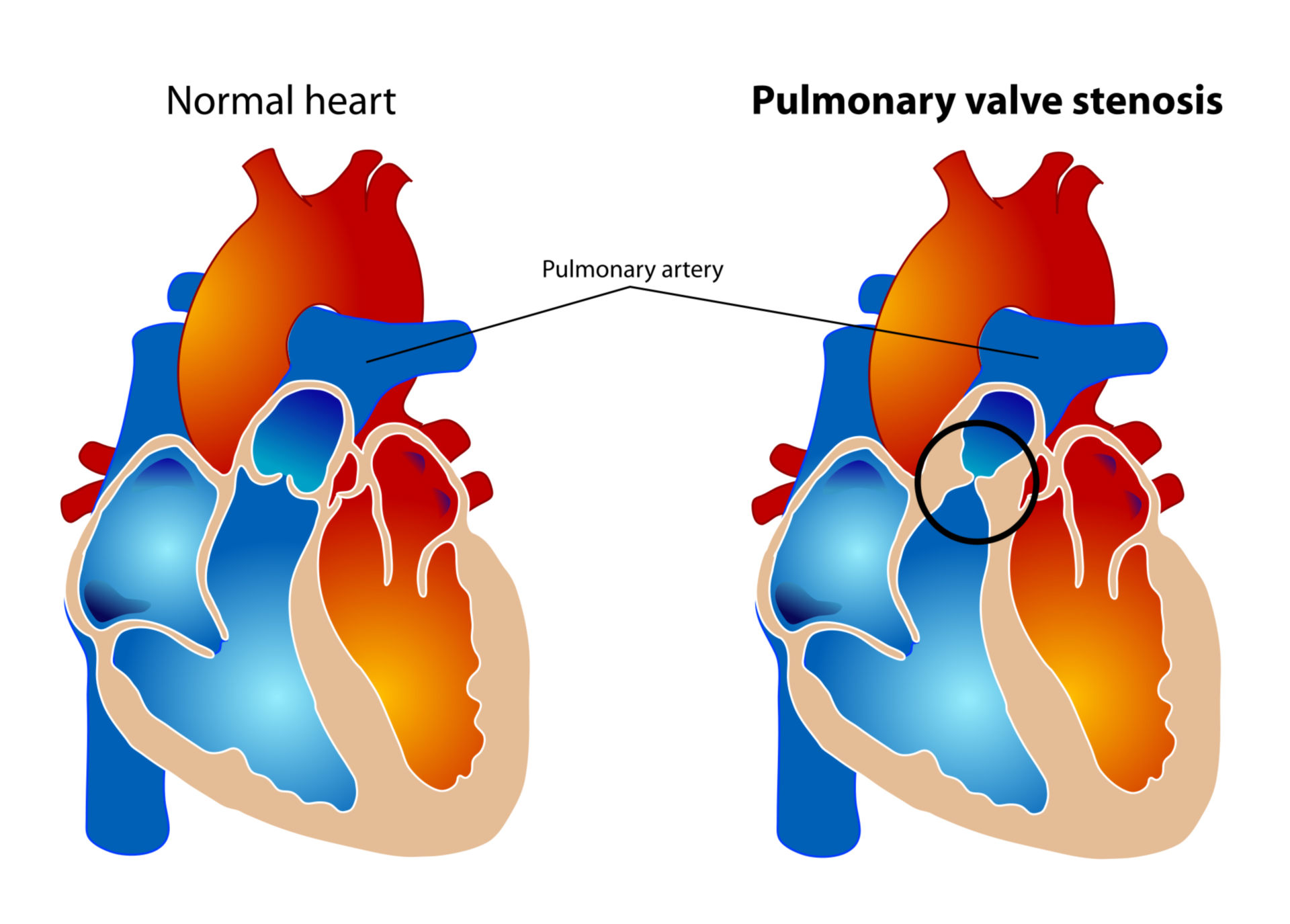 Stenosi della valvola polmonare