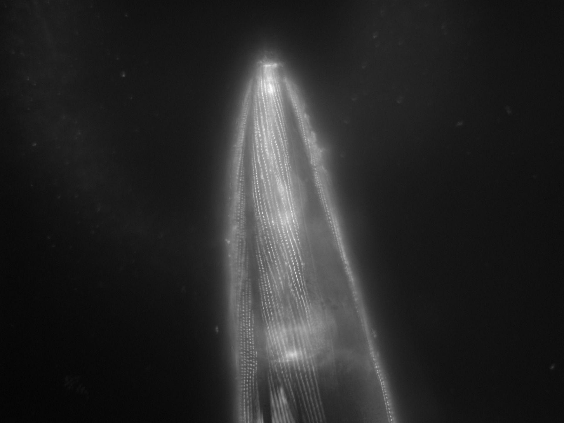 Caenorhabditis elegans (Actin filament) - CIL:1192