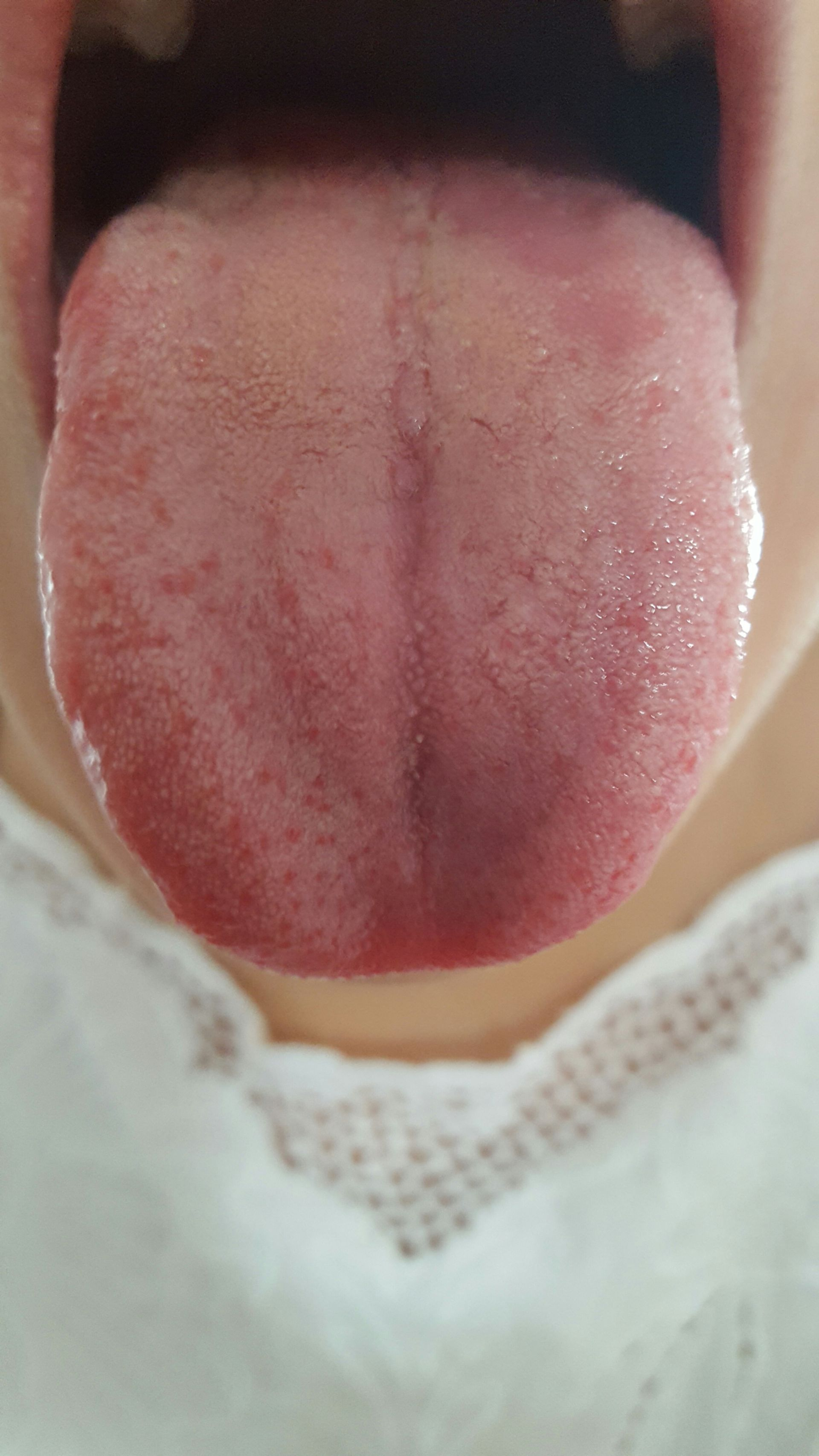 Tongue of female patient