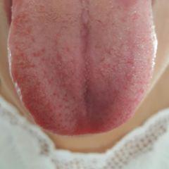 Zungenbelag weiße Starker weißer