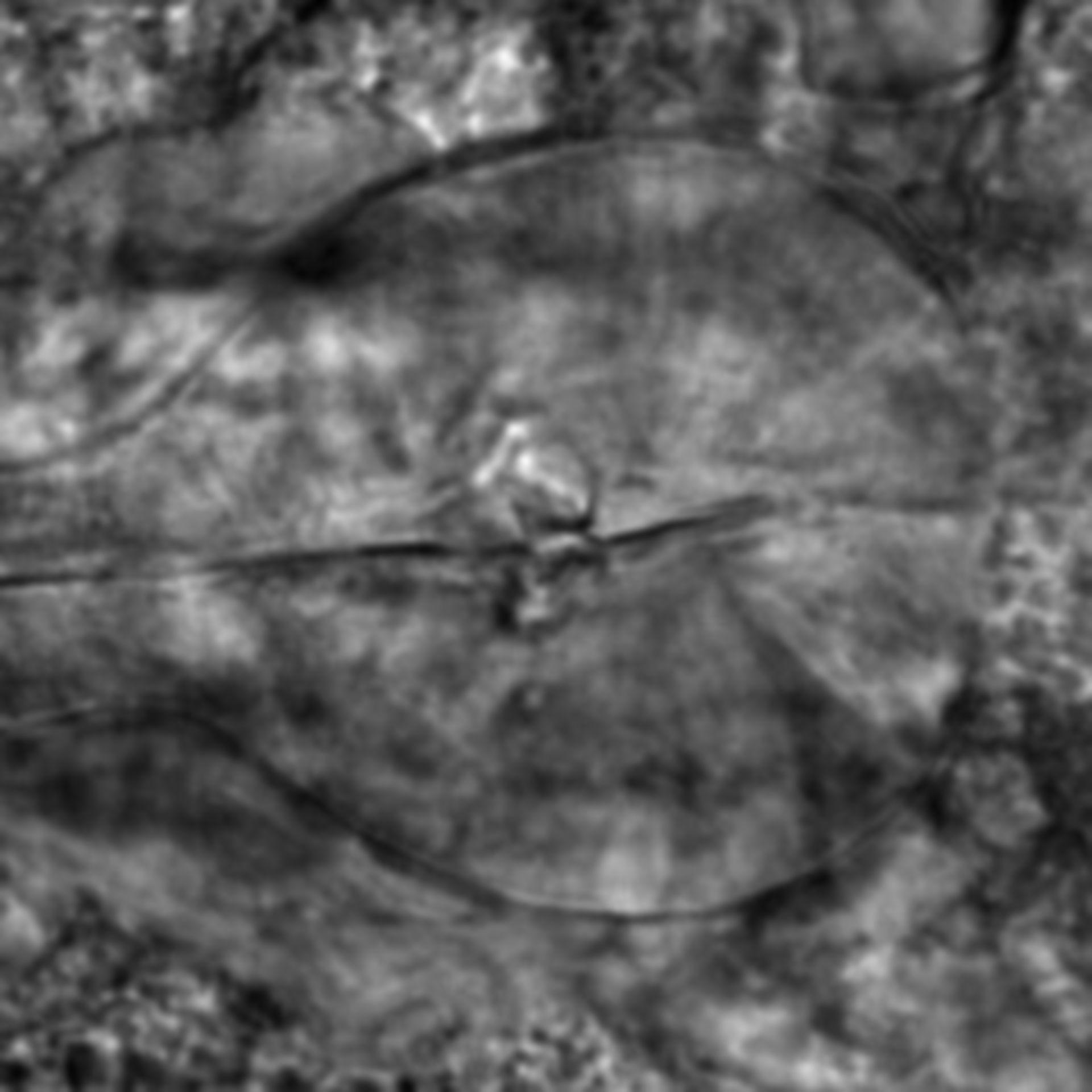 Caenorhabditis elegans - CIL:2211