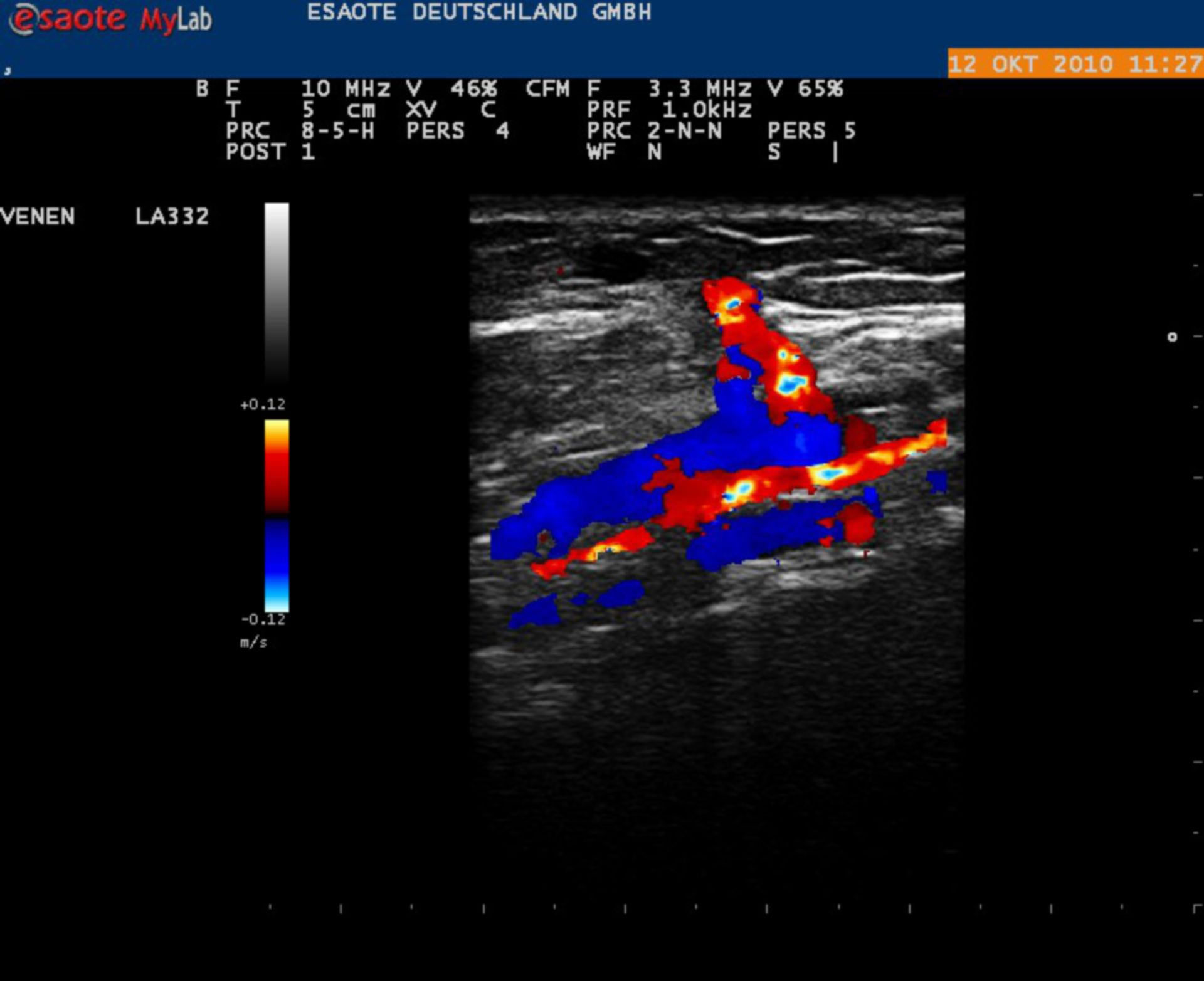 Duplex Sonographie of the Lower Leg: V. tibialis post. and Cockett-Vein