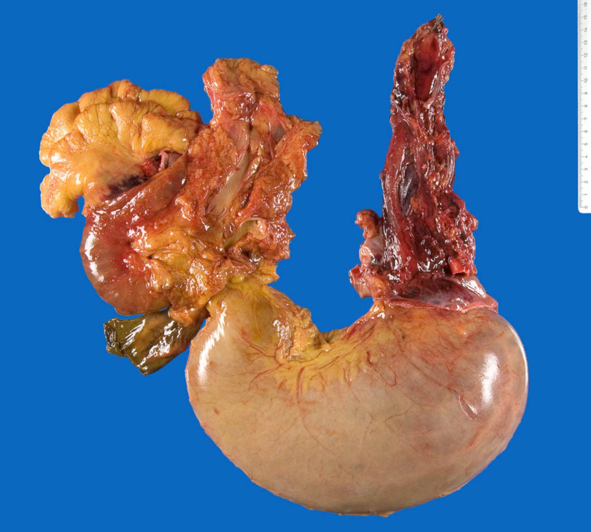 Perforation des Ösophagus (Boerhaave-Syndrom)