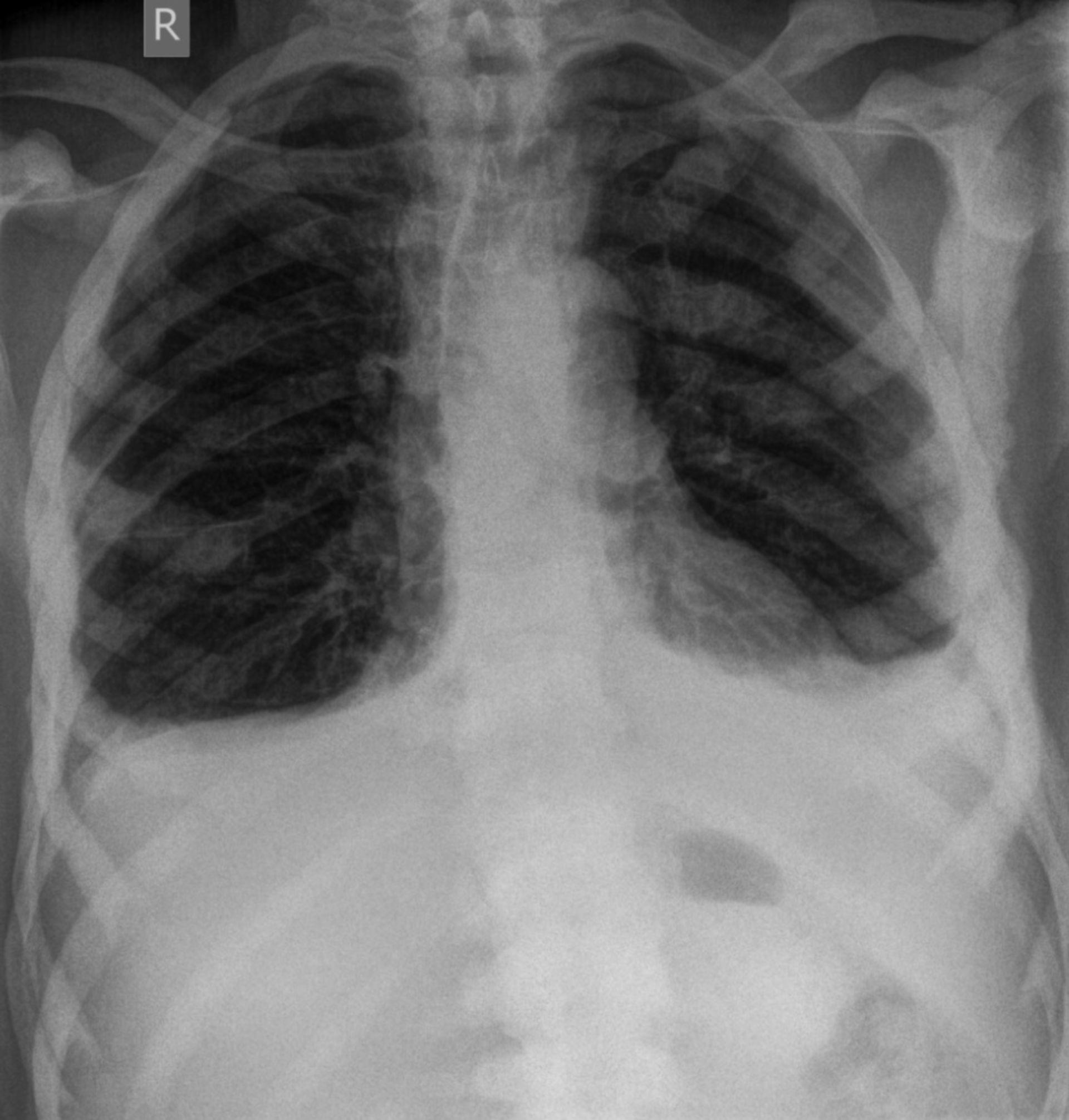 Prostata-Ca - ossäre Thoraxmetastasen