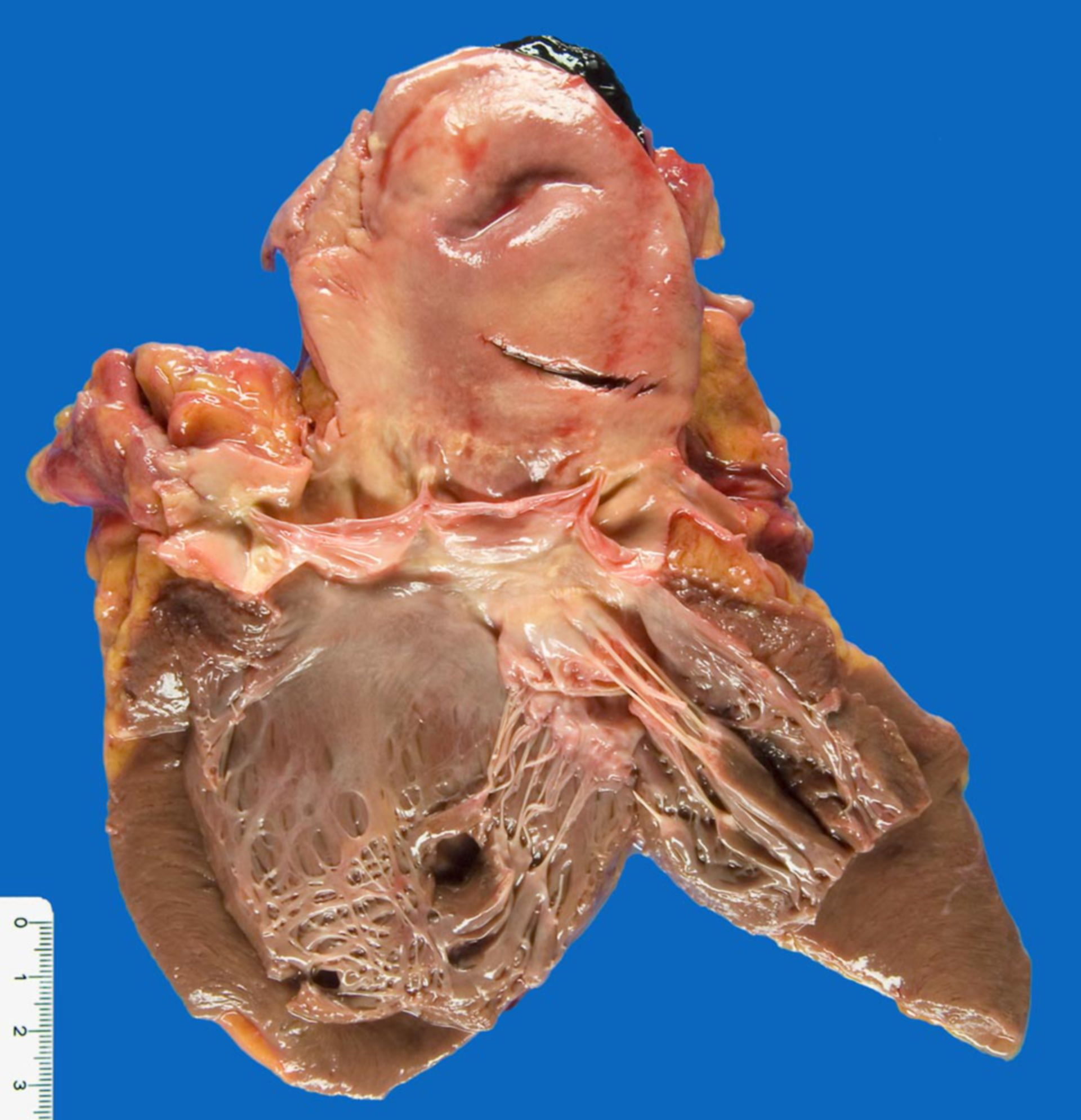 Fresh dissection of the Aorta ascendens, ripped intima