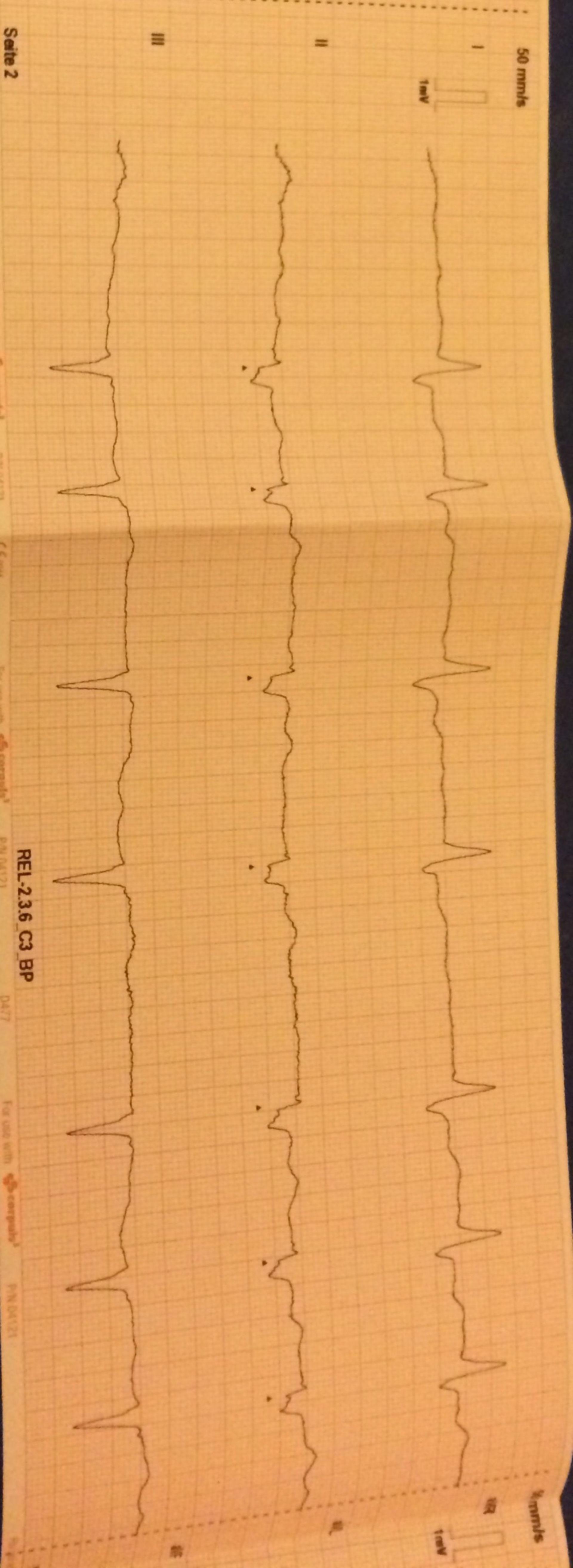 EKG Aufnahme einer 90-jährigen Patientin