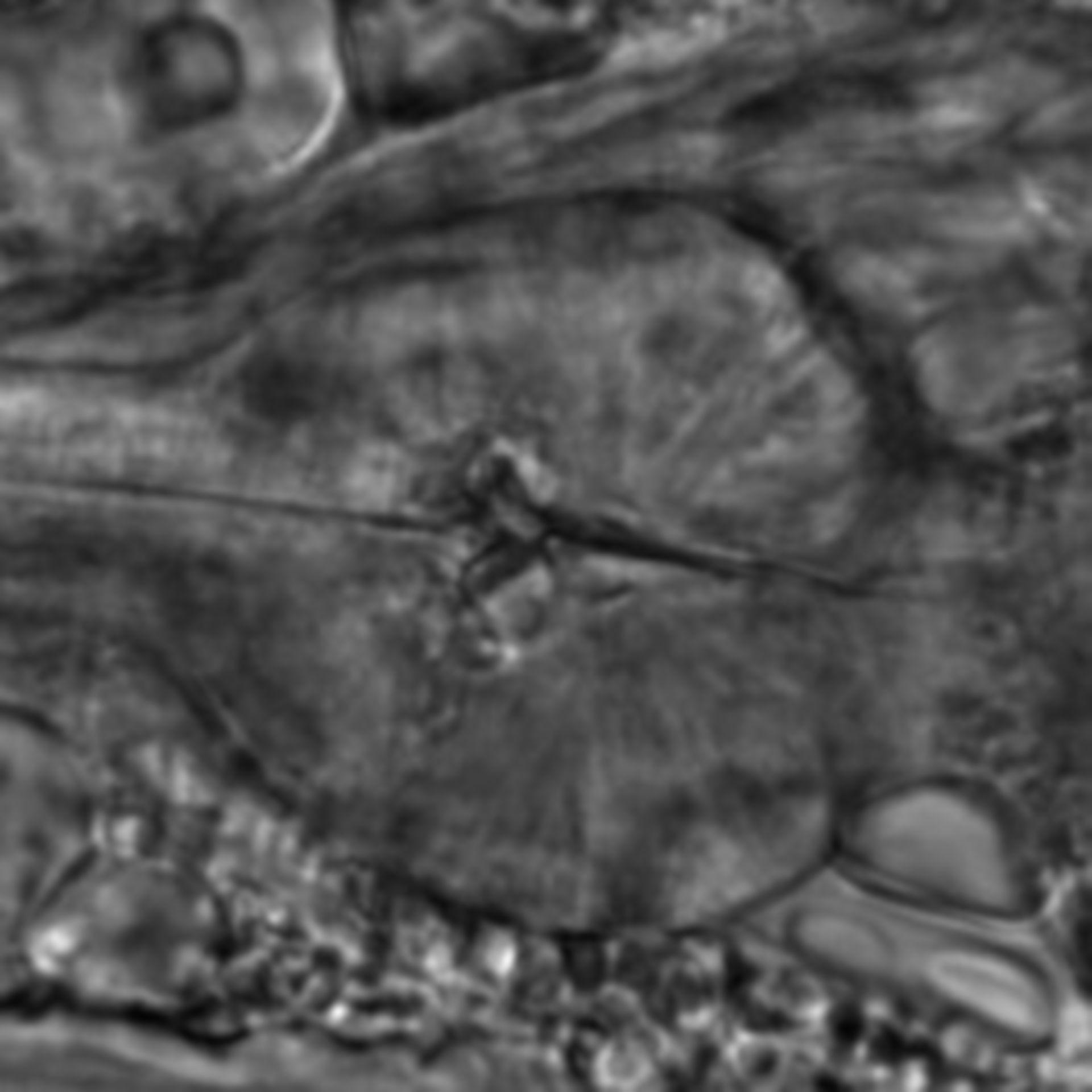 Caenorhabditis elegans - CIL:1772
