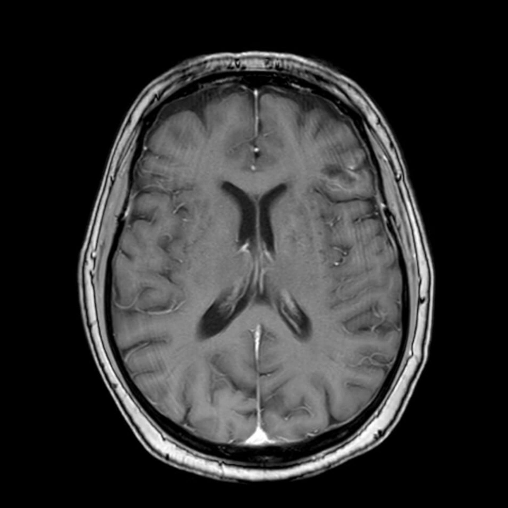 Befund rückläufig: links frontal