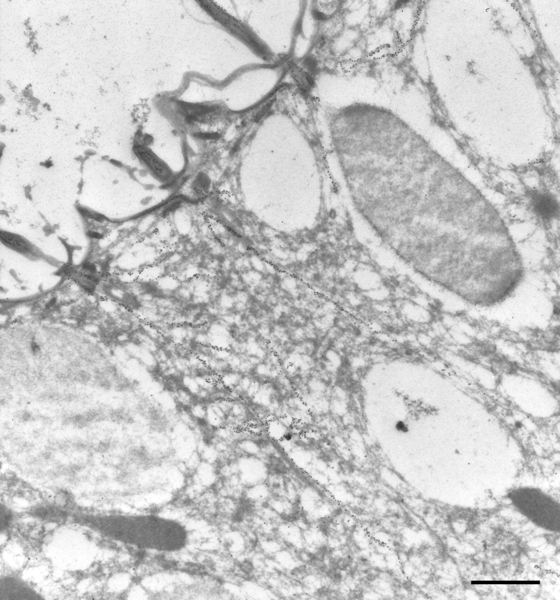 Paramecium tetraurelia (Microtubule basal body) - CIL:9846