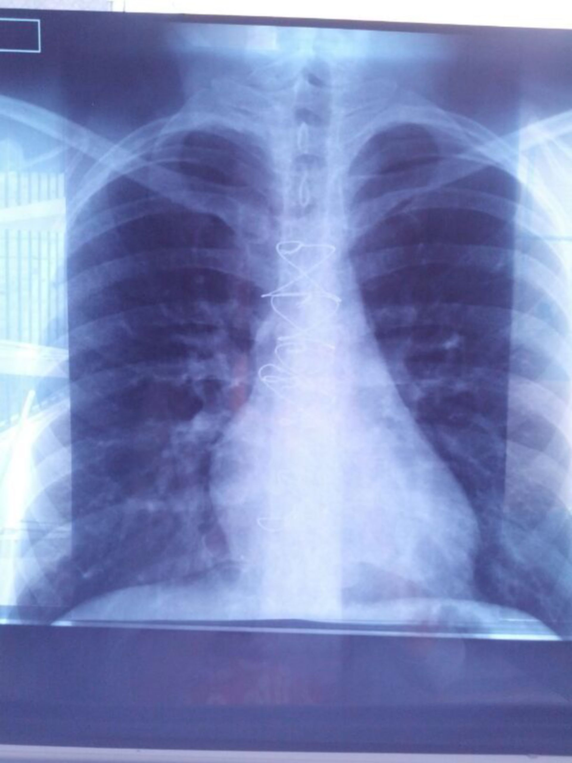 Chest radiograph 5 years after surgery
