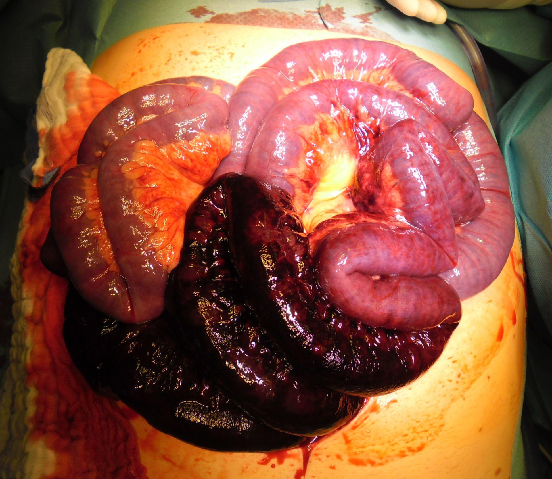 El vólvulo del intestino delgado - shock séptico