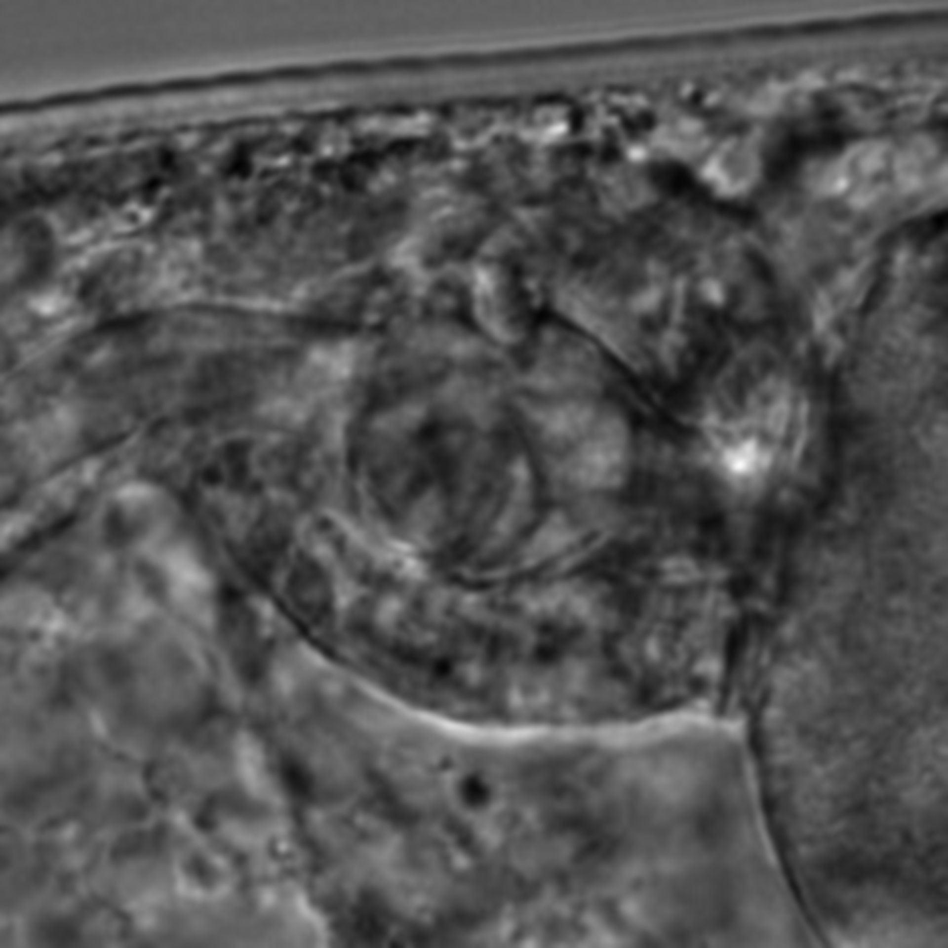 Caenorhabditis elegans - CIL:2778