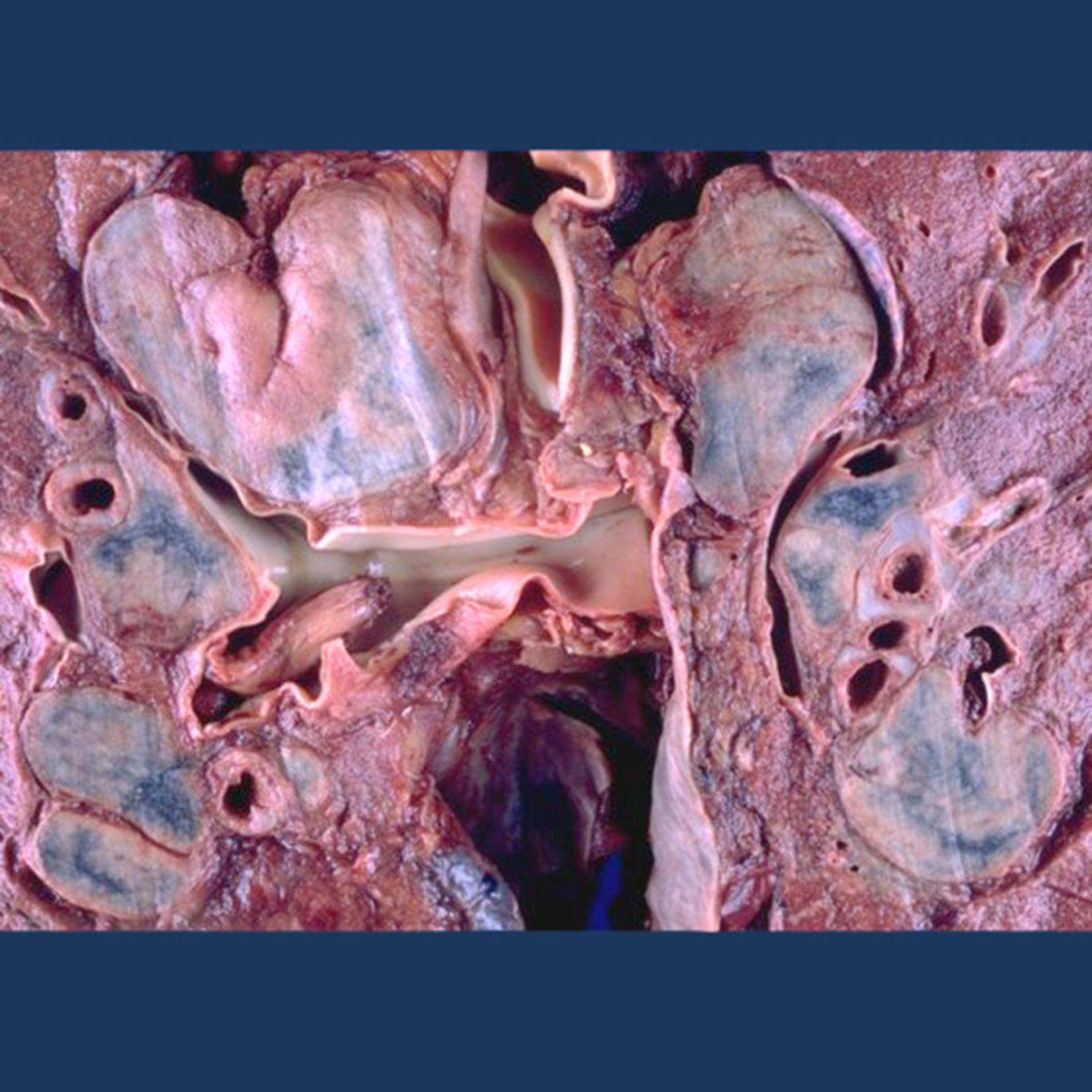 Sarcoidosis (muestra de pulmón, vista de primer plano, imagen 2)