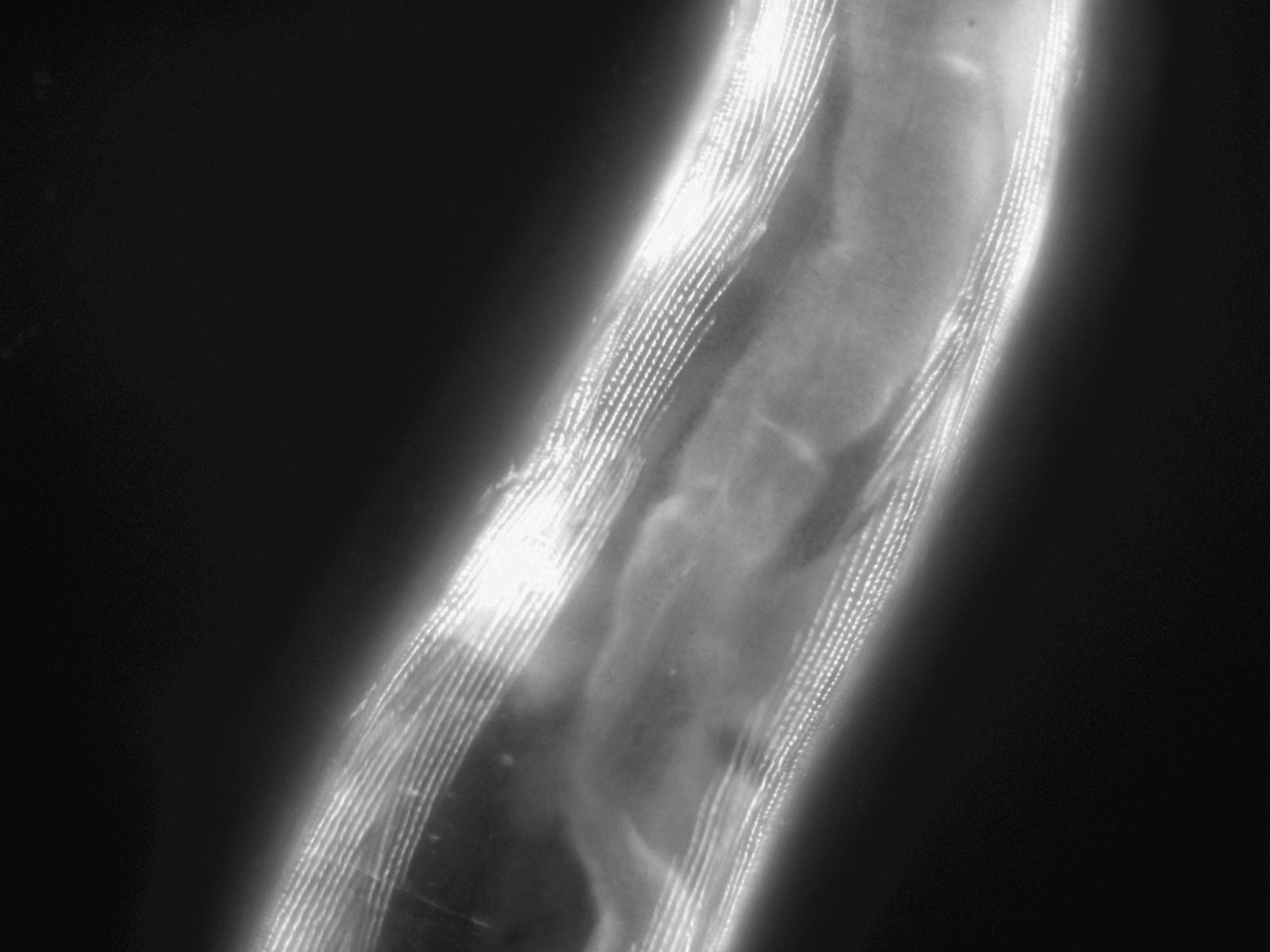 Caenorhabditis elegans (Actin filament) - CIL:1195