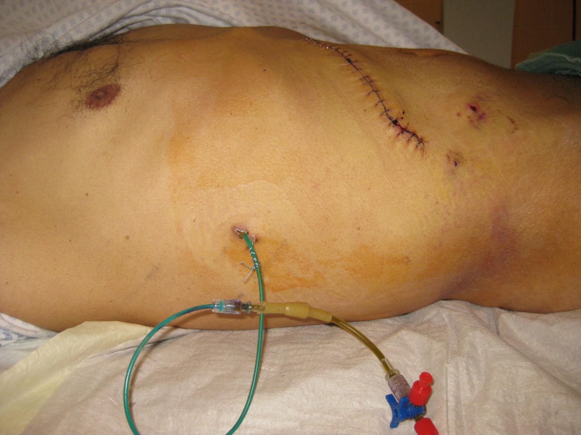 Percutaneous transhepatic cholangio drainage