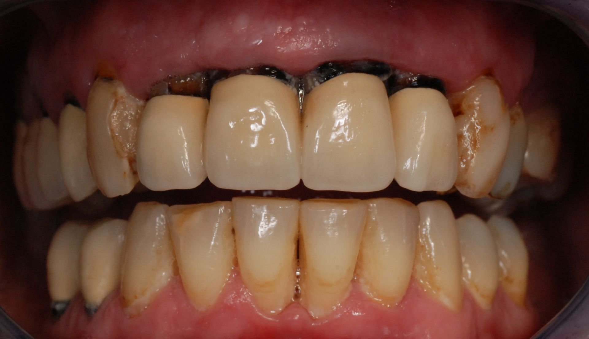 Exposed crown edges after gingival resession