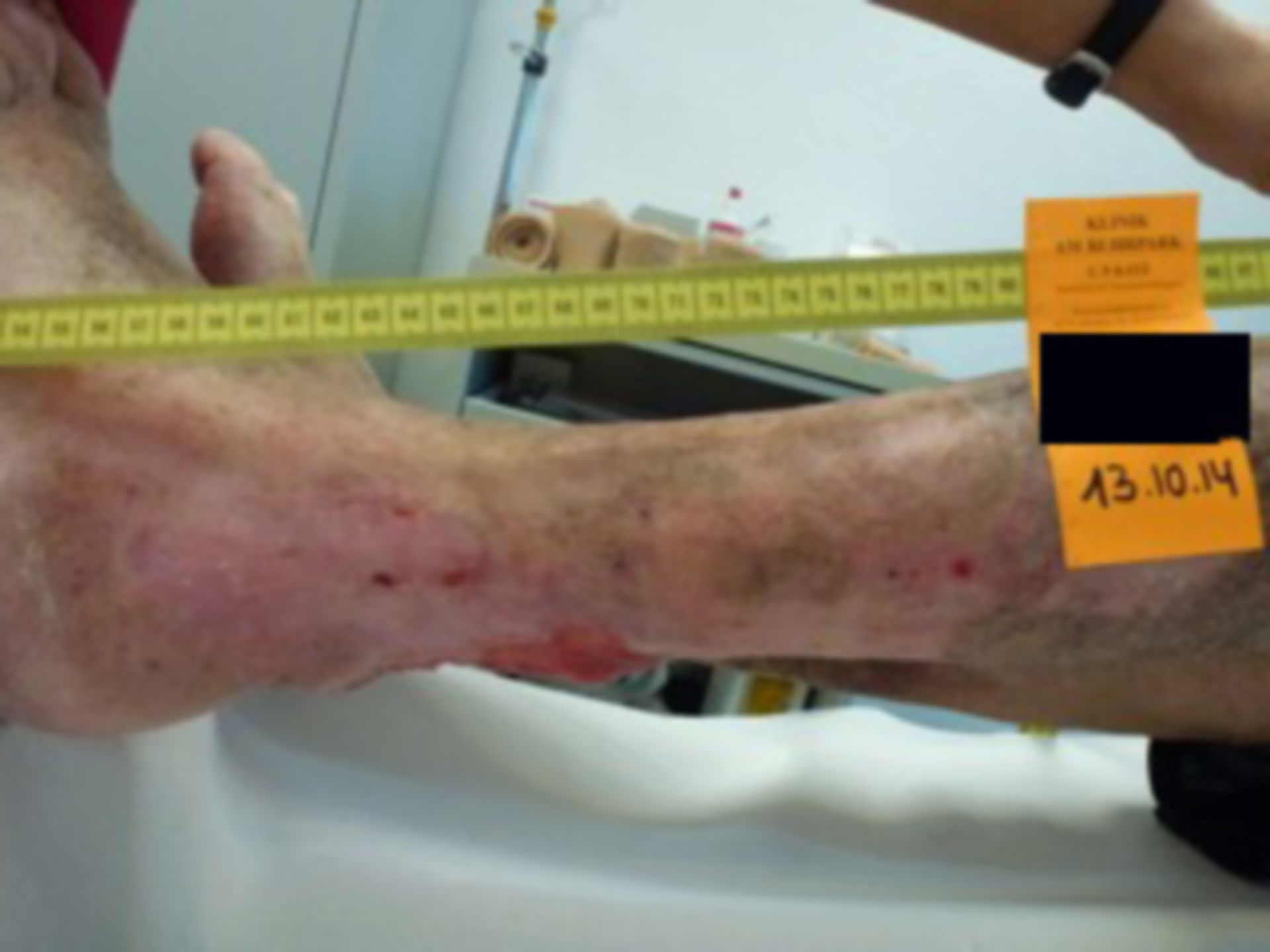 Úlcera de la pierna - abierta por 40 años (32)