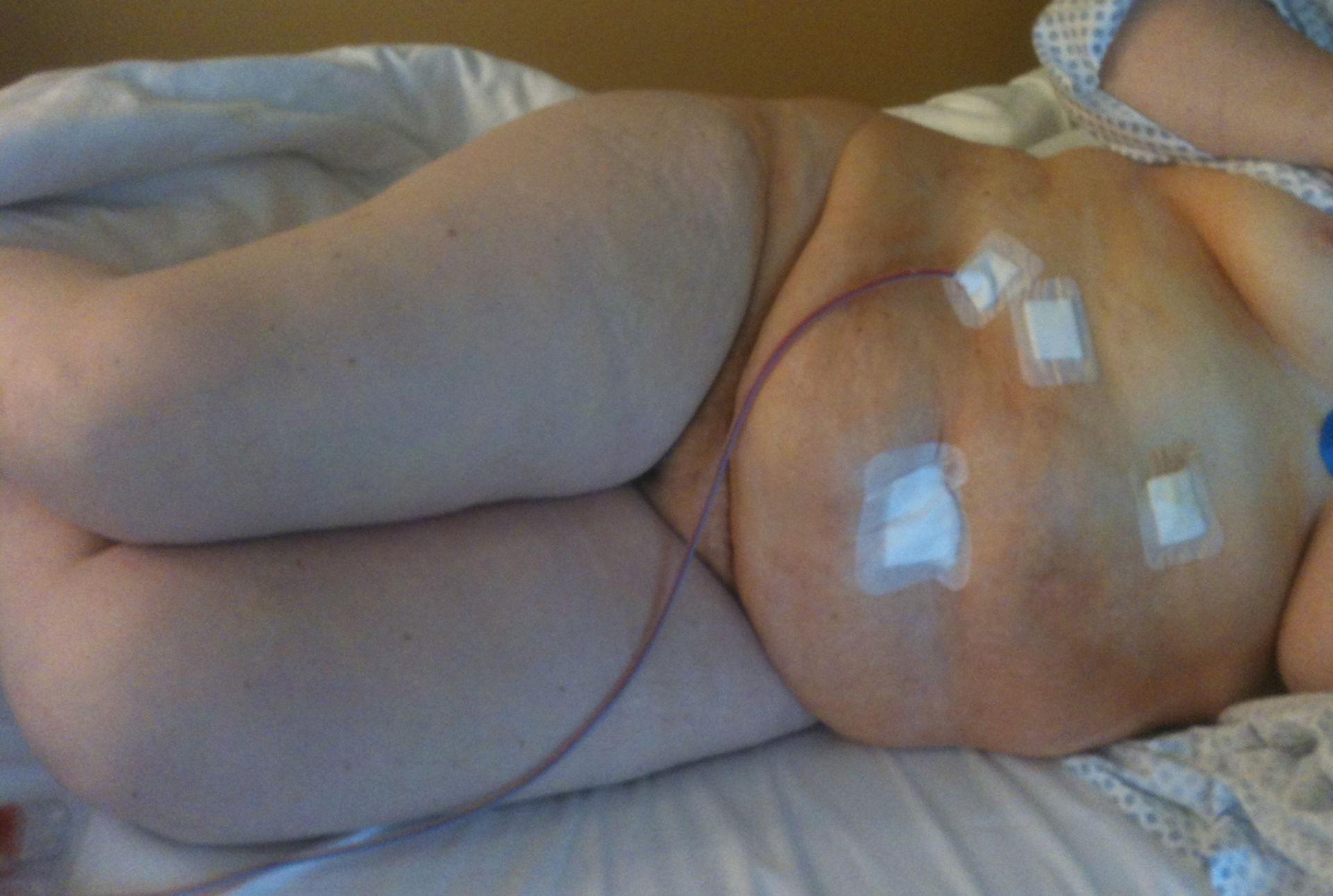 Exantema de la piel - 30 minutos después del tratamiento