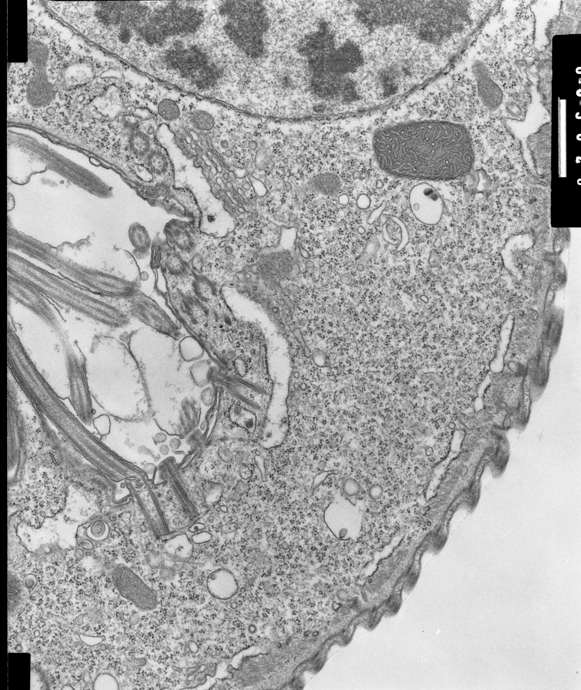 Opercularia coarctata (Golgi) - CIL:7339