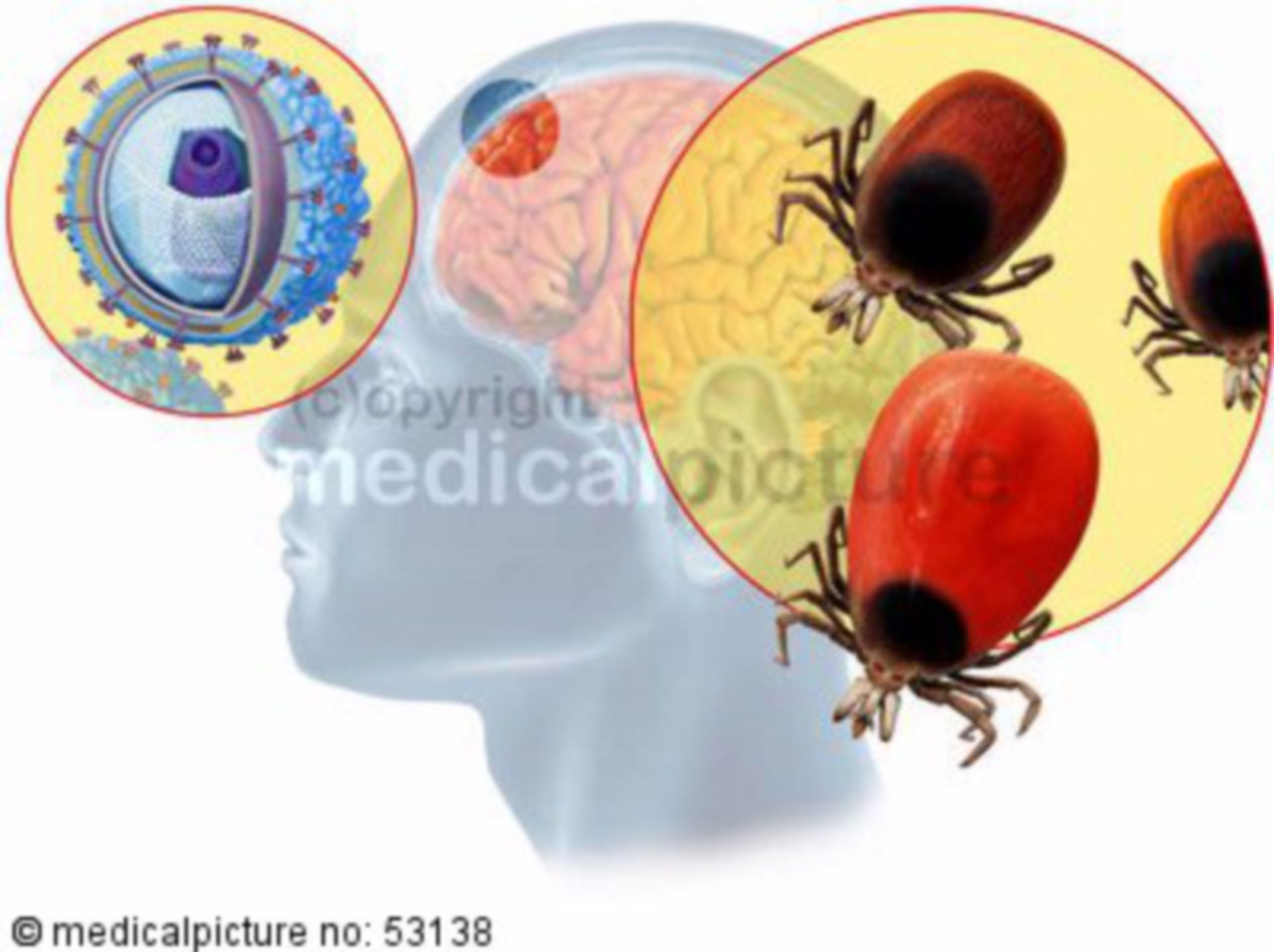 Tick-borne encephalitis (TBE)