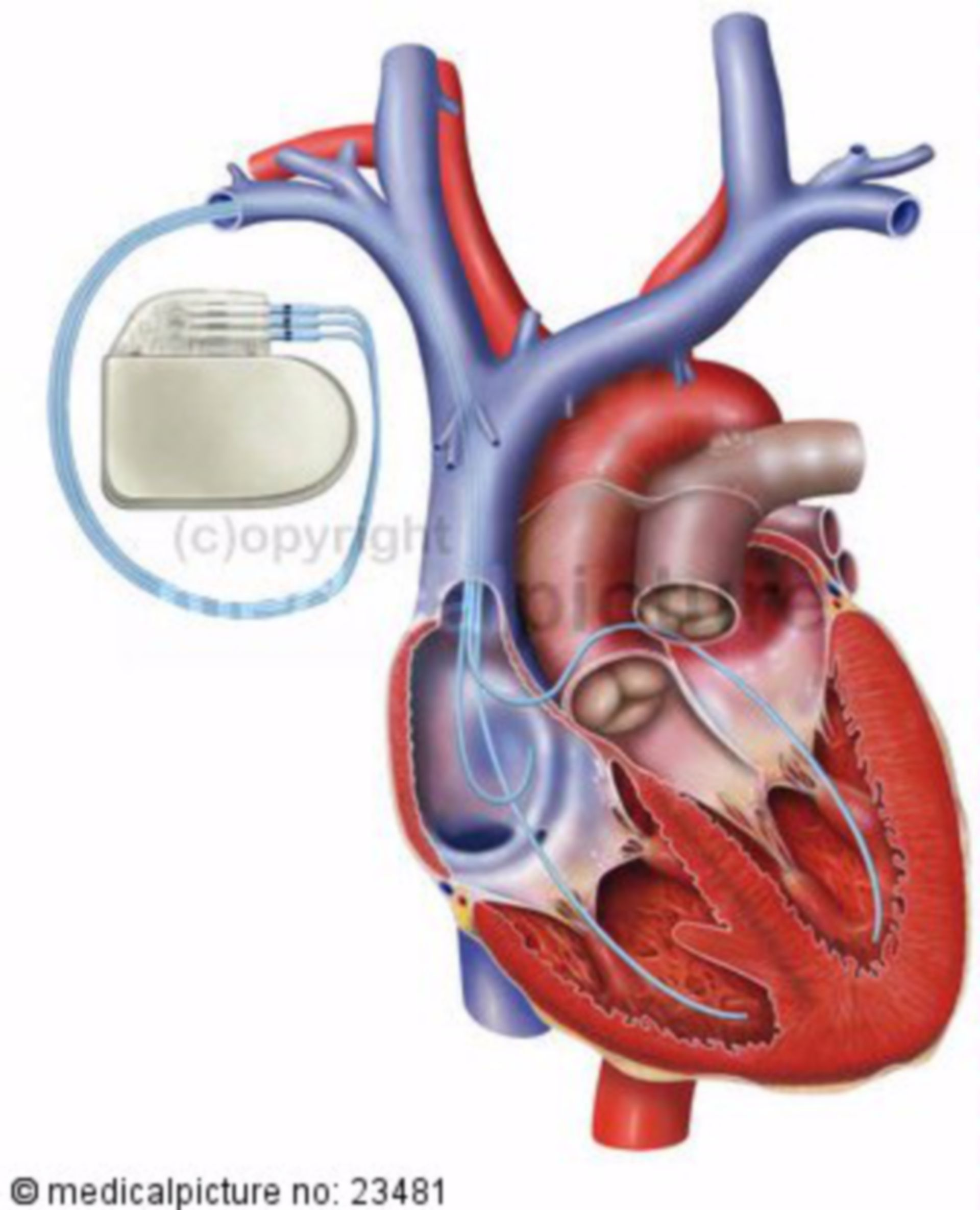 cuore con pacemaker (3)