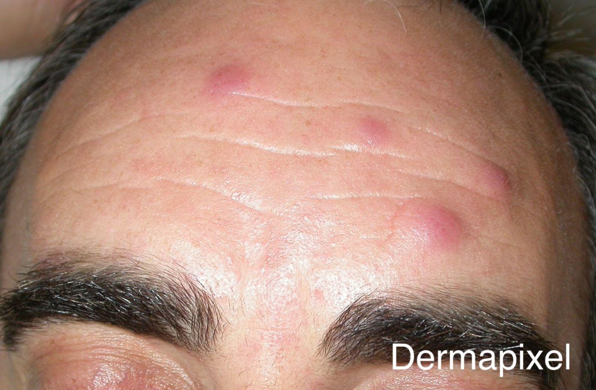 Multiple erhabene Maculae auf der Stirn eines Patienten