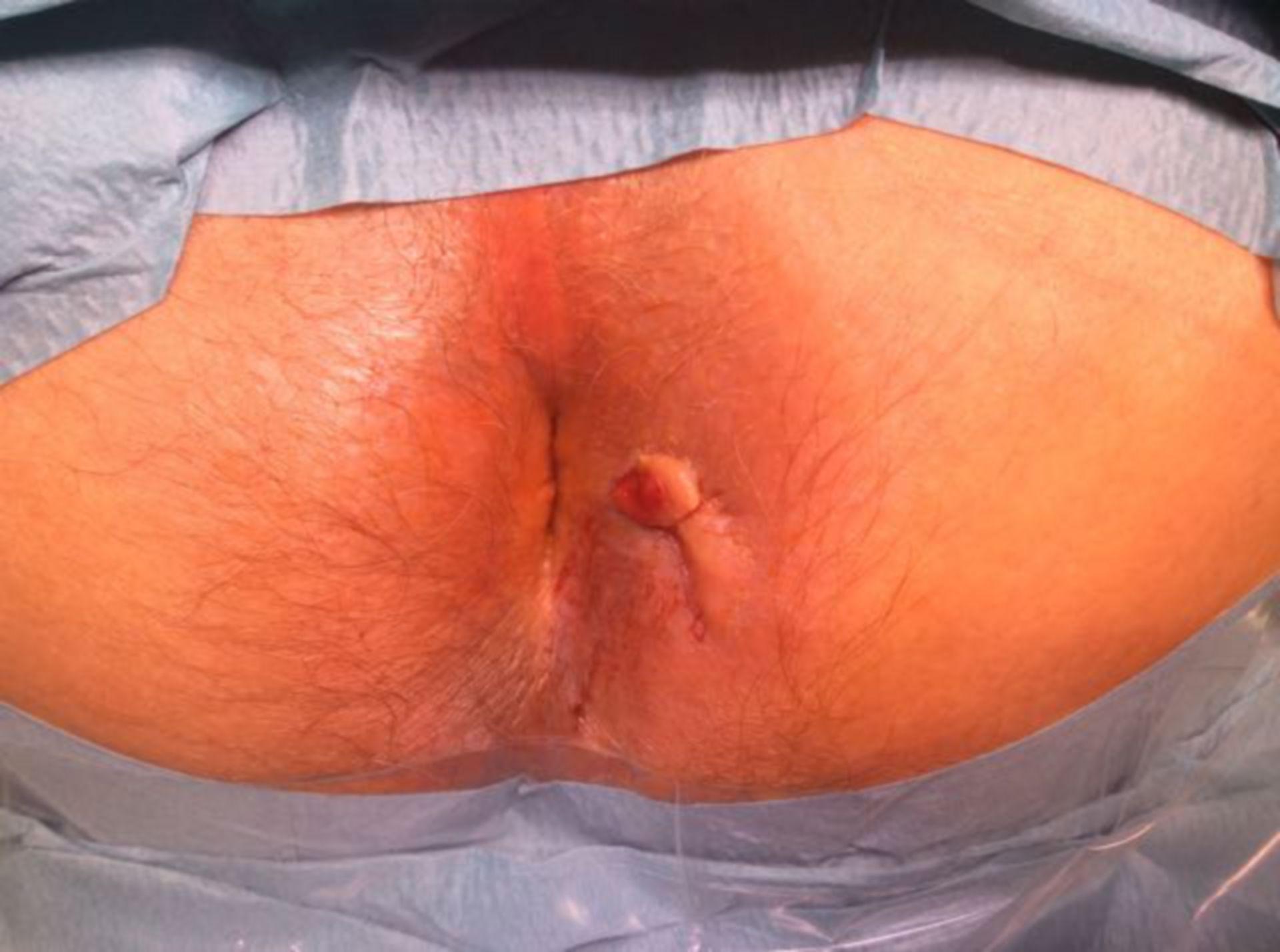 Fístula anal transesfintérica