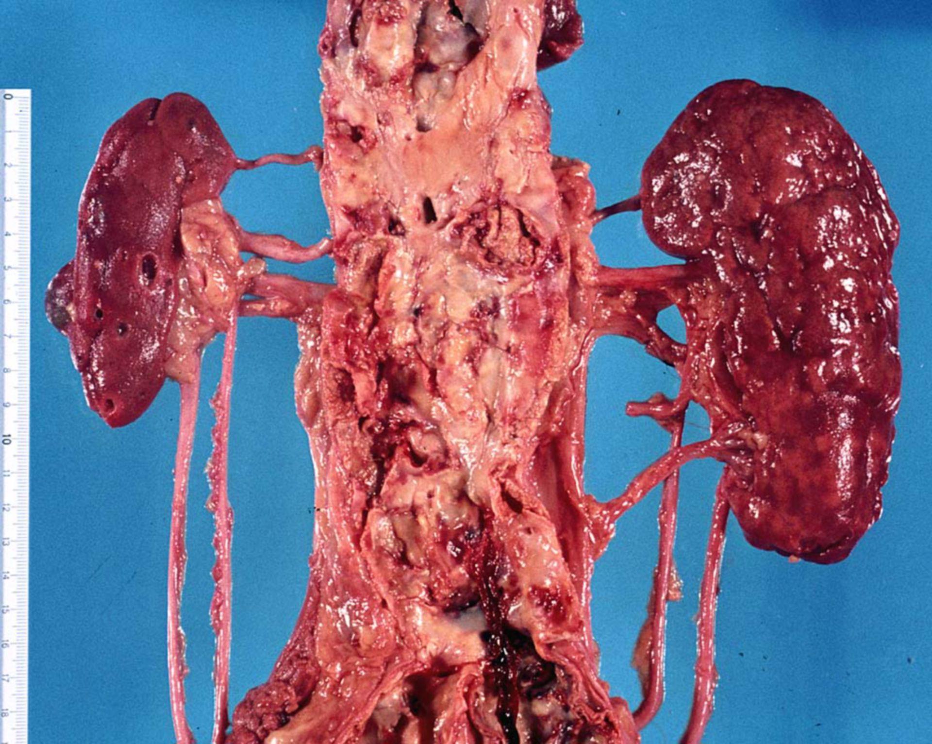 Rene grinzo dalla stenosi delle arterie dei reni