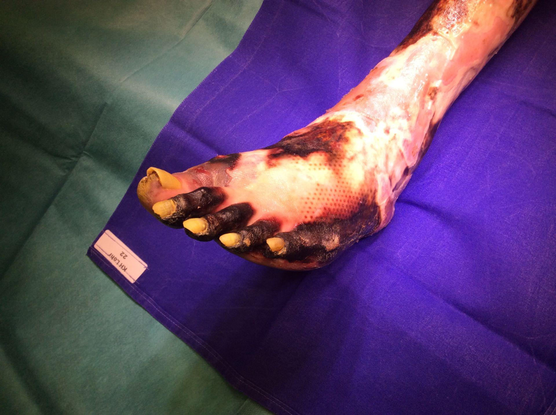 AVK plus Angiogenese Hemmer bei Pankreas CA