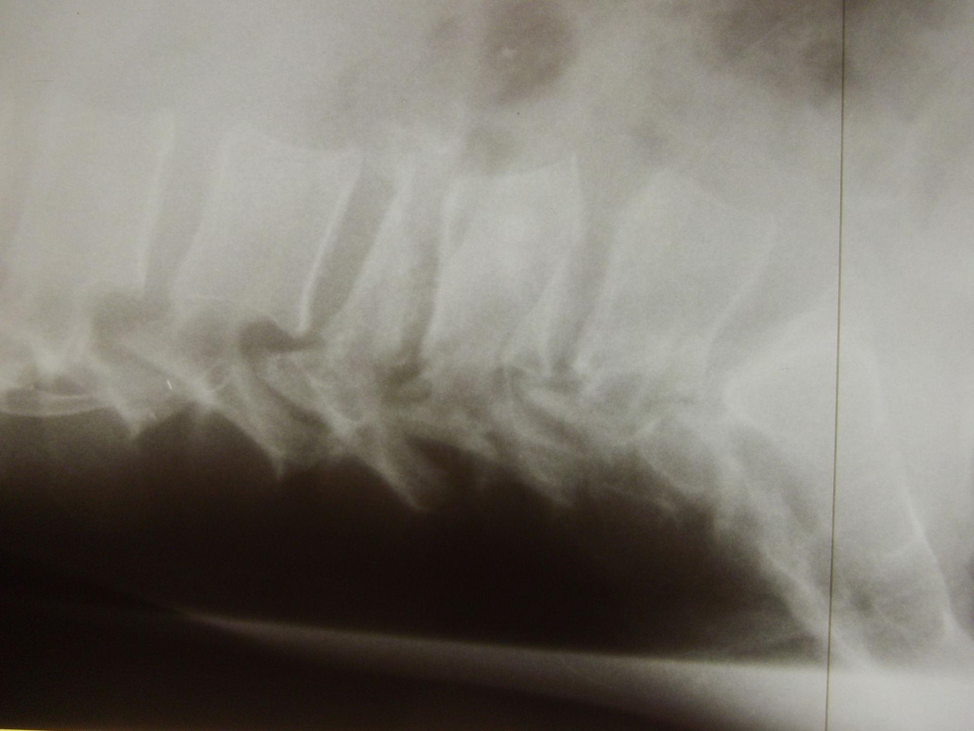 Osteoporotische Wirbelfraktur