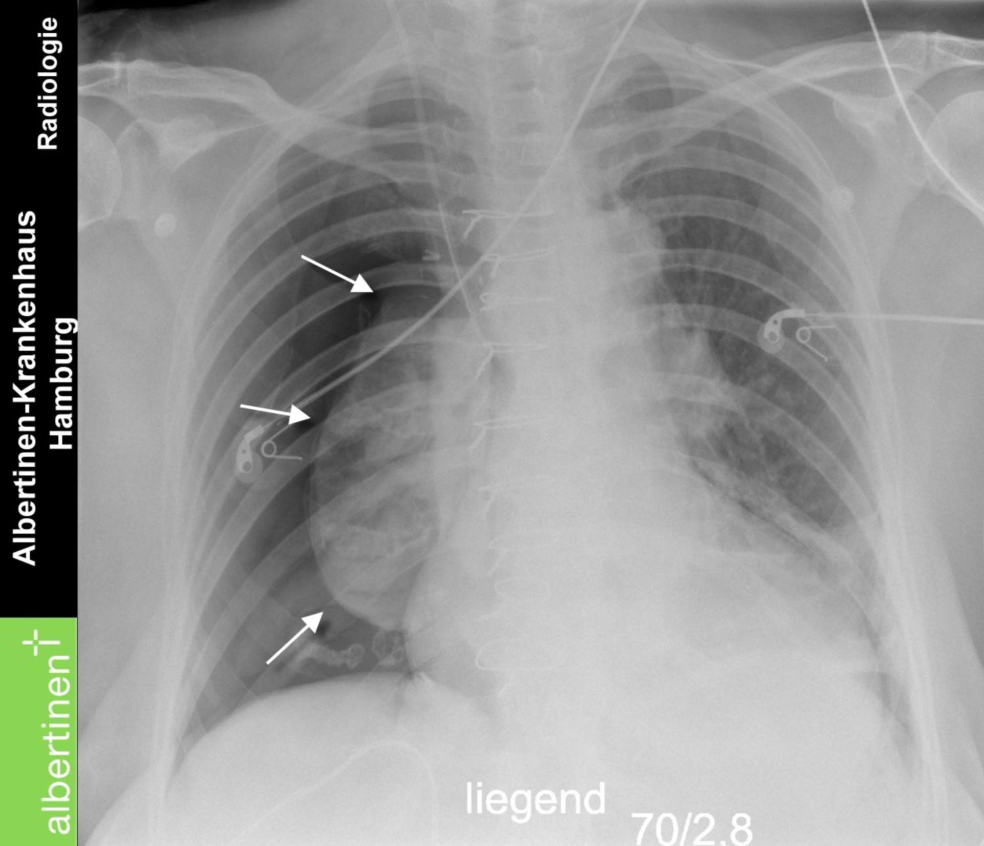 Pneumothorax v Saugung