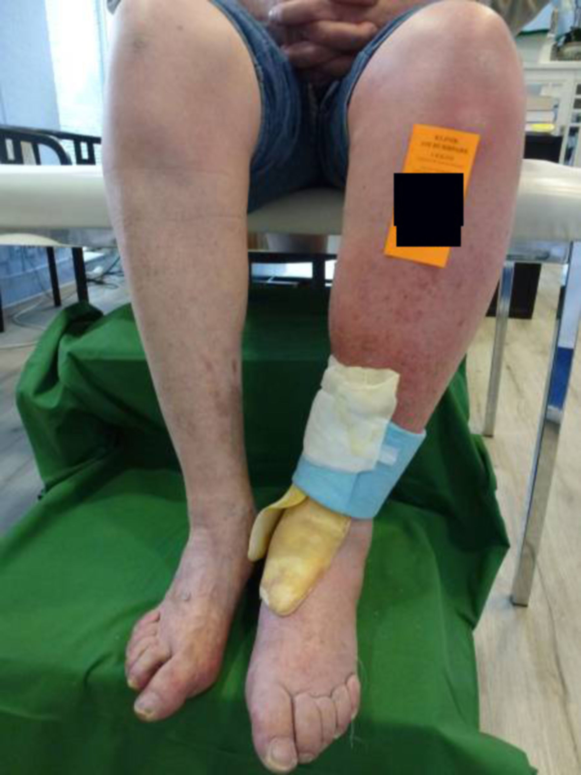 Úlcera de la pierna - Cerrada dentro de 72 horas (2)