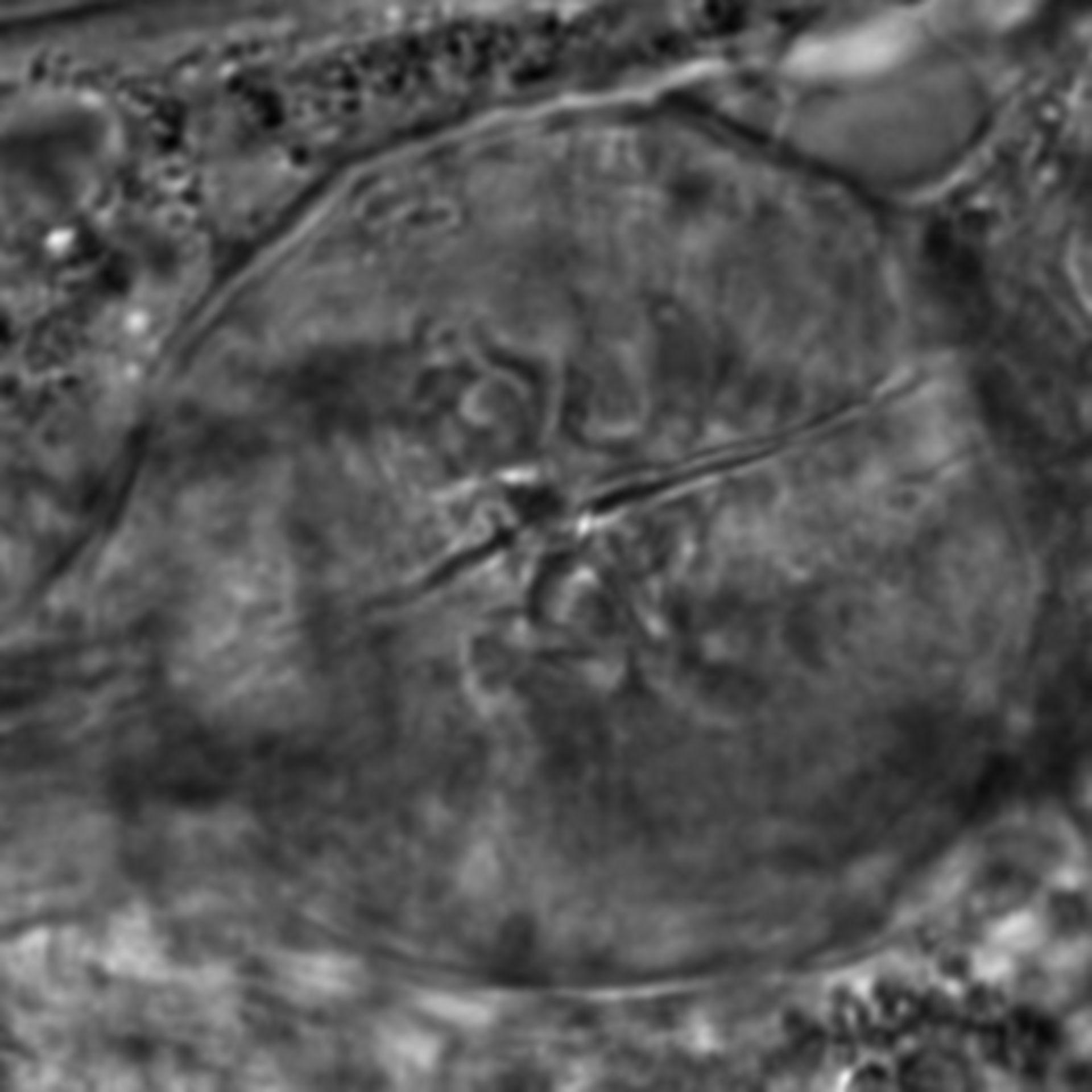 Caenorhabditis elegans - CIL:2756
