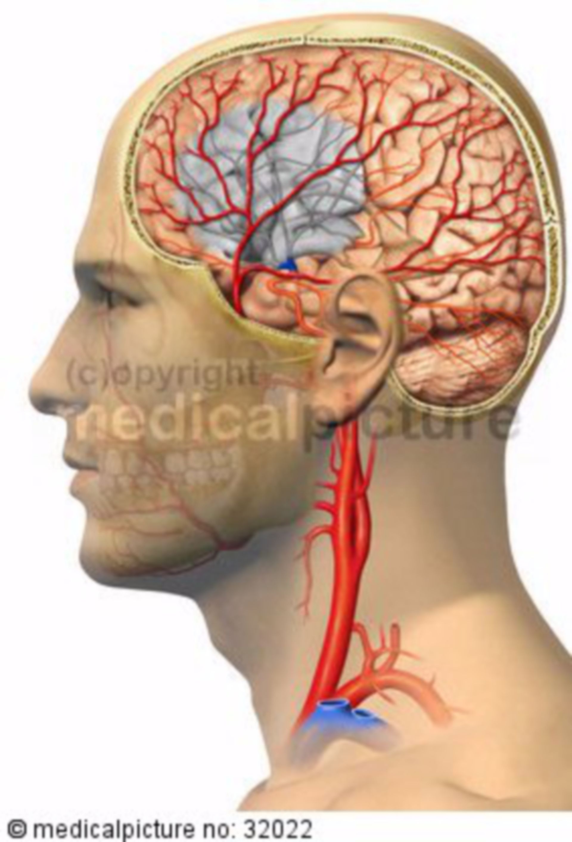 Stroke caused by Embolism