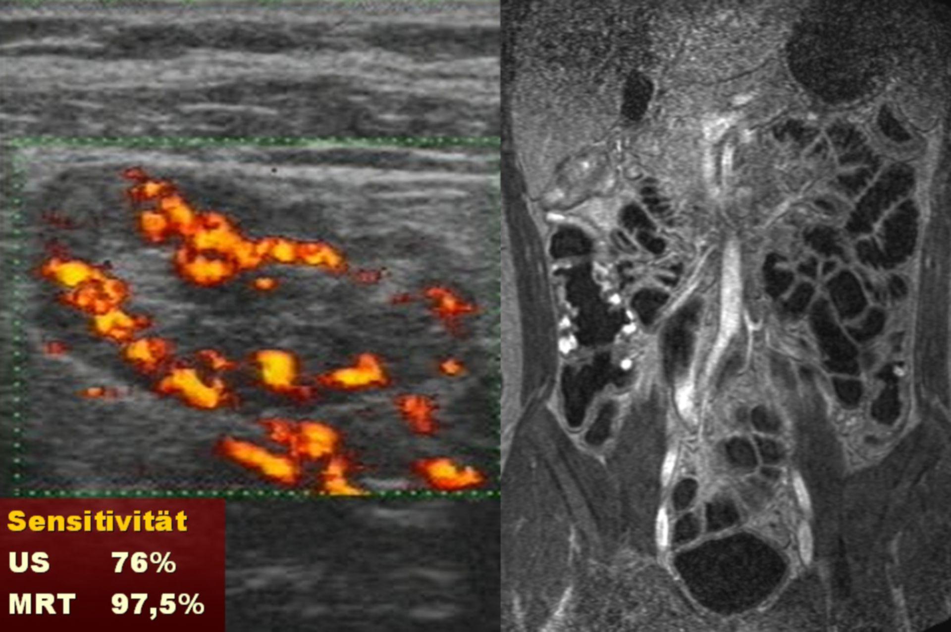 Malattia di Crohn in ecografia e risonanza magnetica