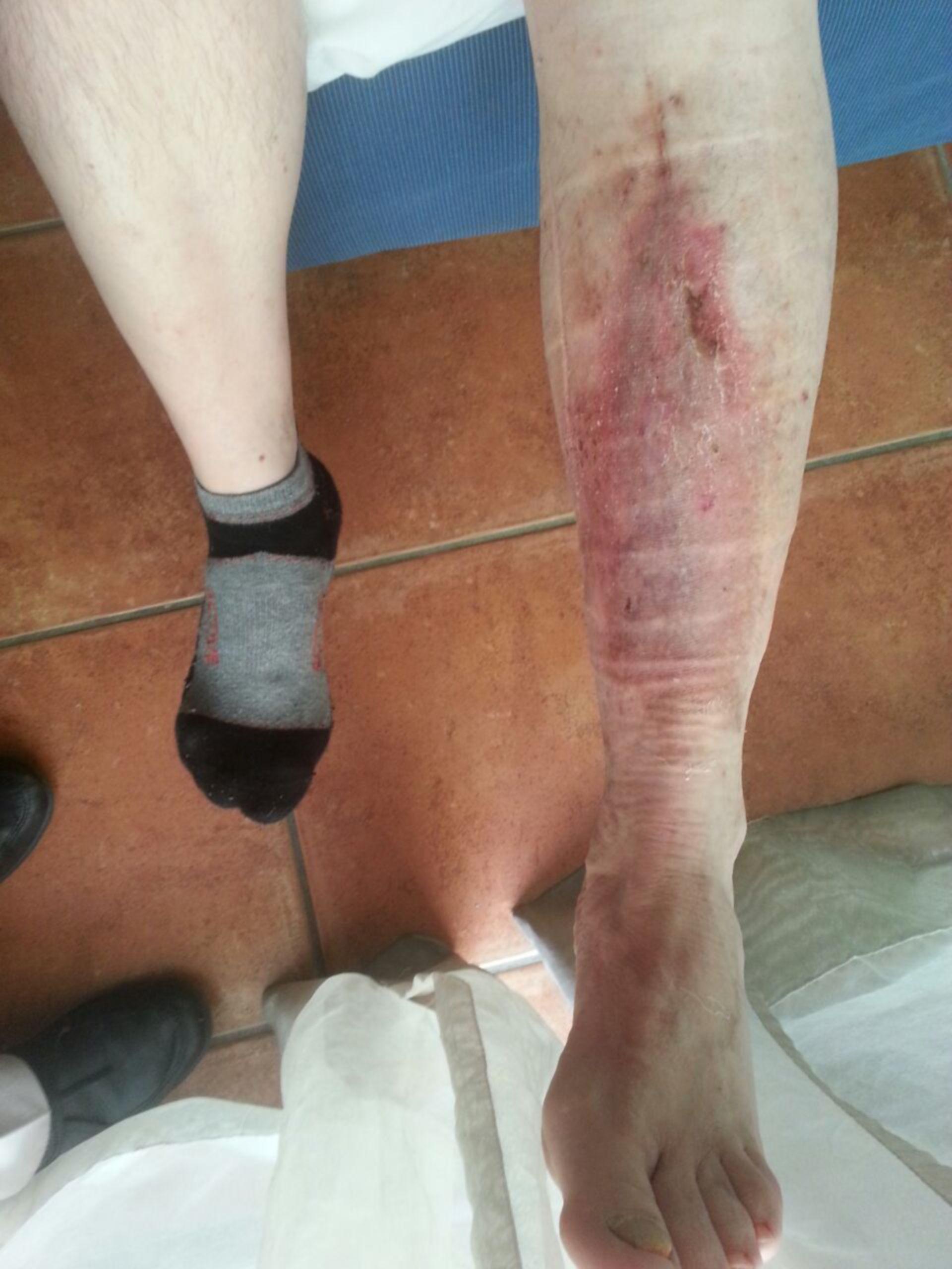 Úlcera de la pierna -20 años abierta: resultado ambulatorio (18)