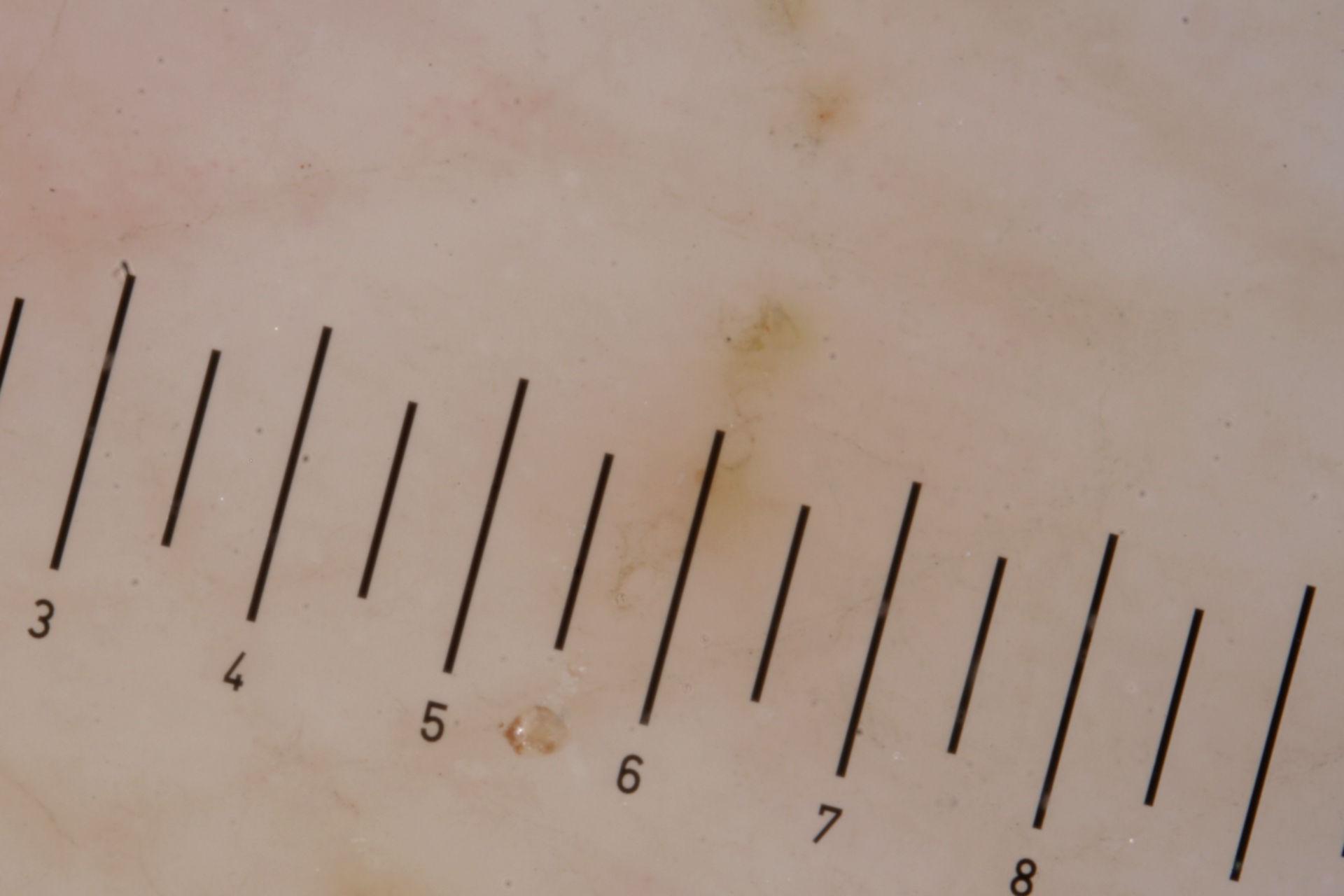 Escabiosis con ácaros por dermatoscopia